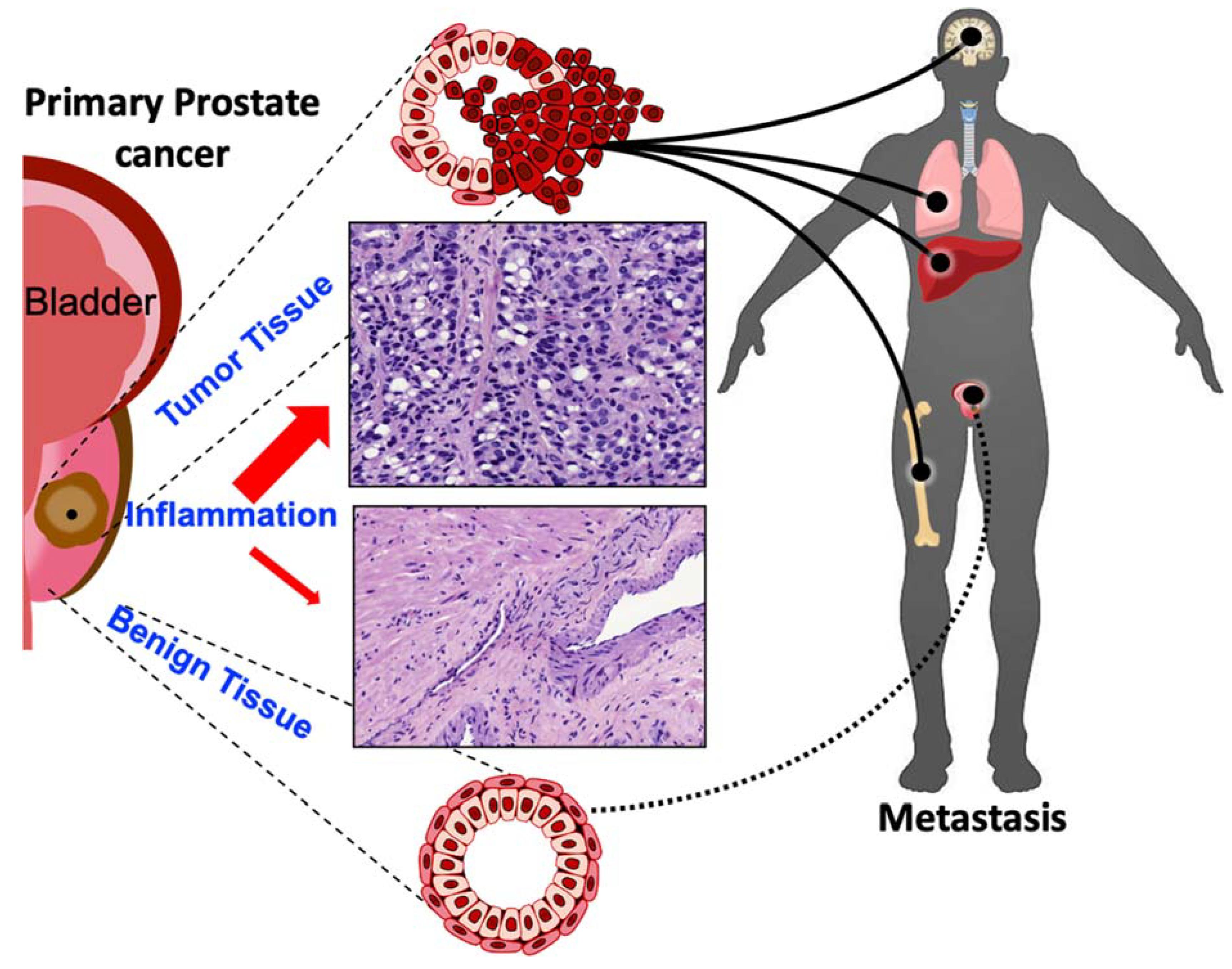 prostatitis és vírusa