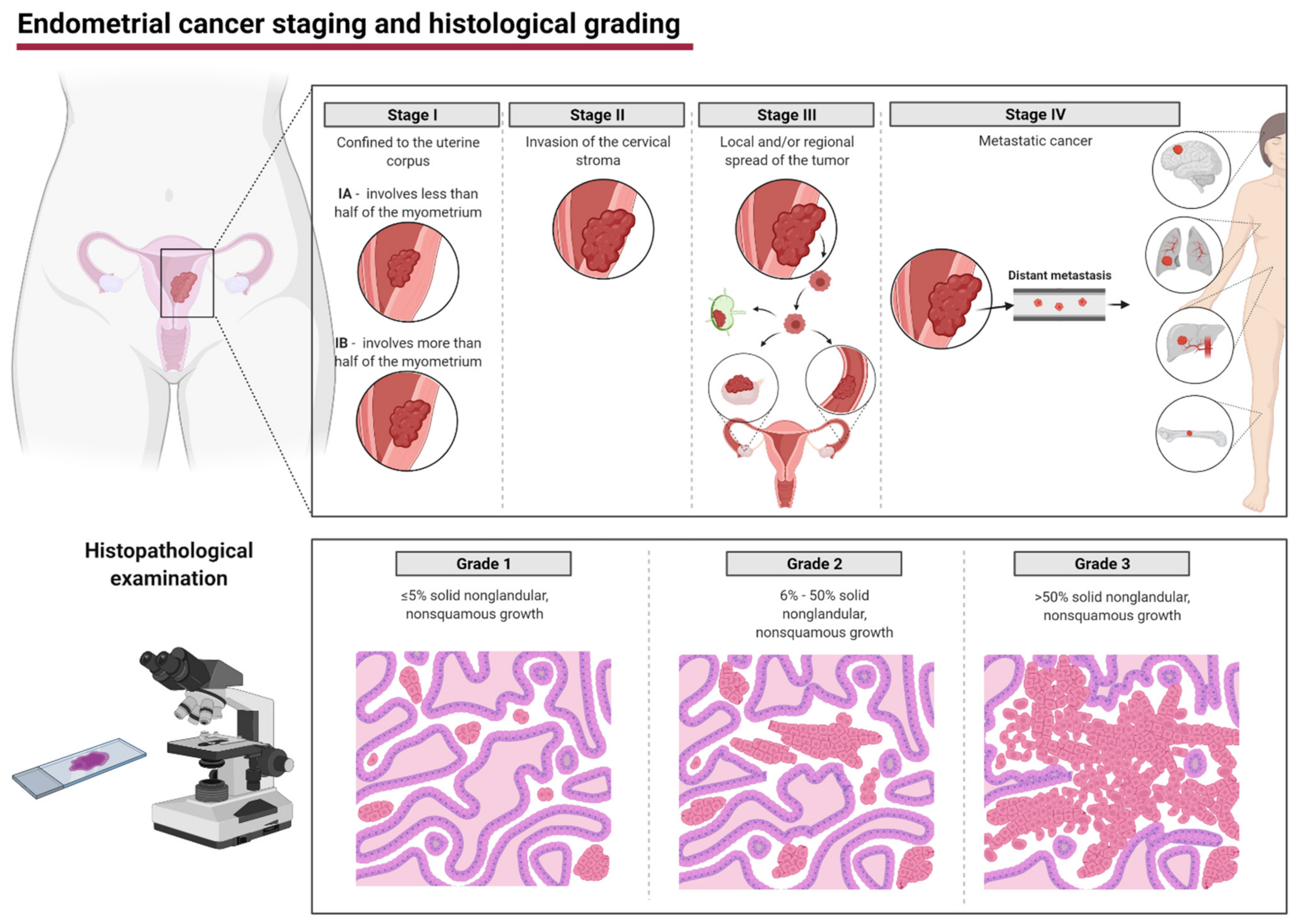 endometrial cancer hong kong