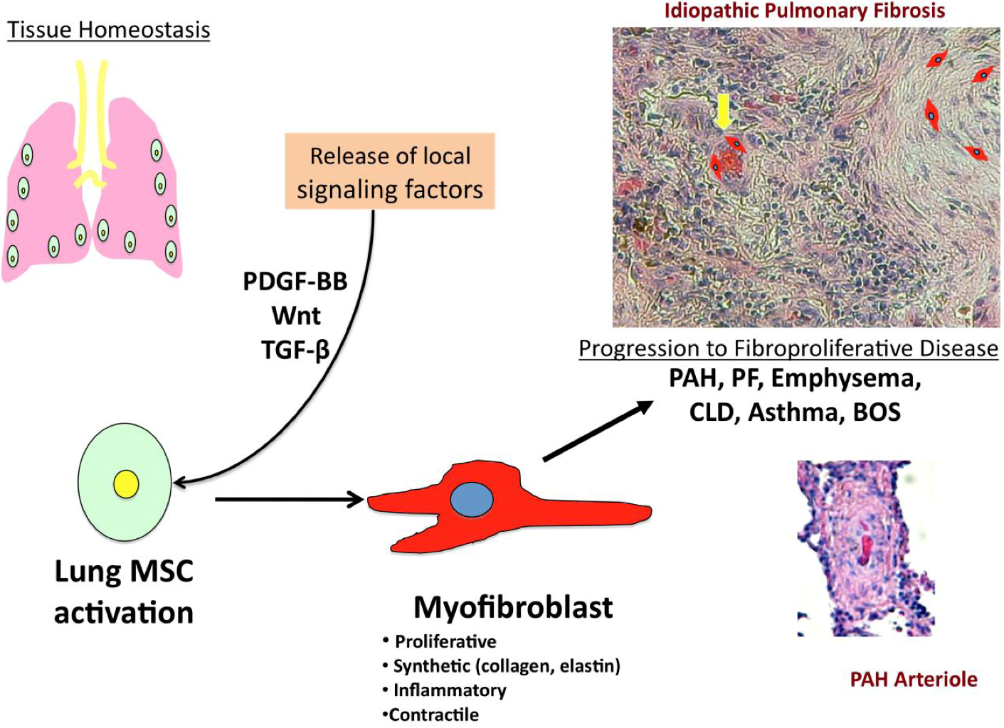 Cells Free Full Text The Potential For Resident Lung