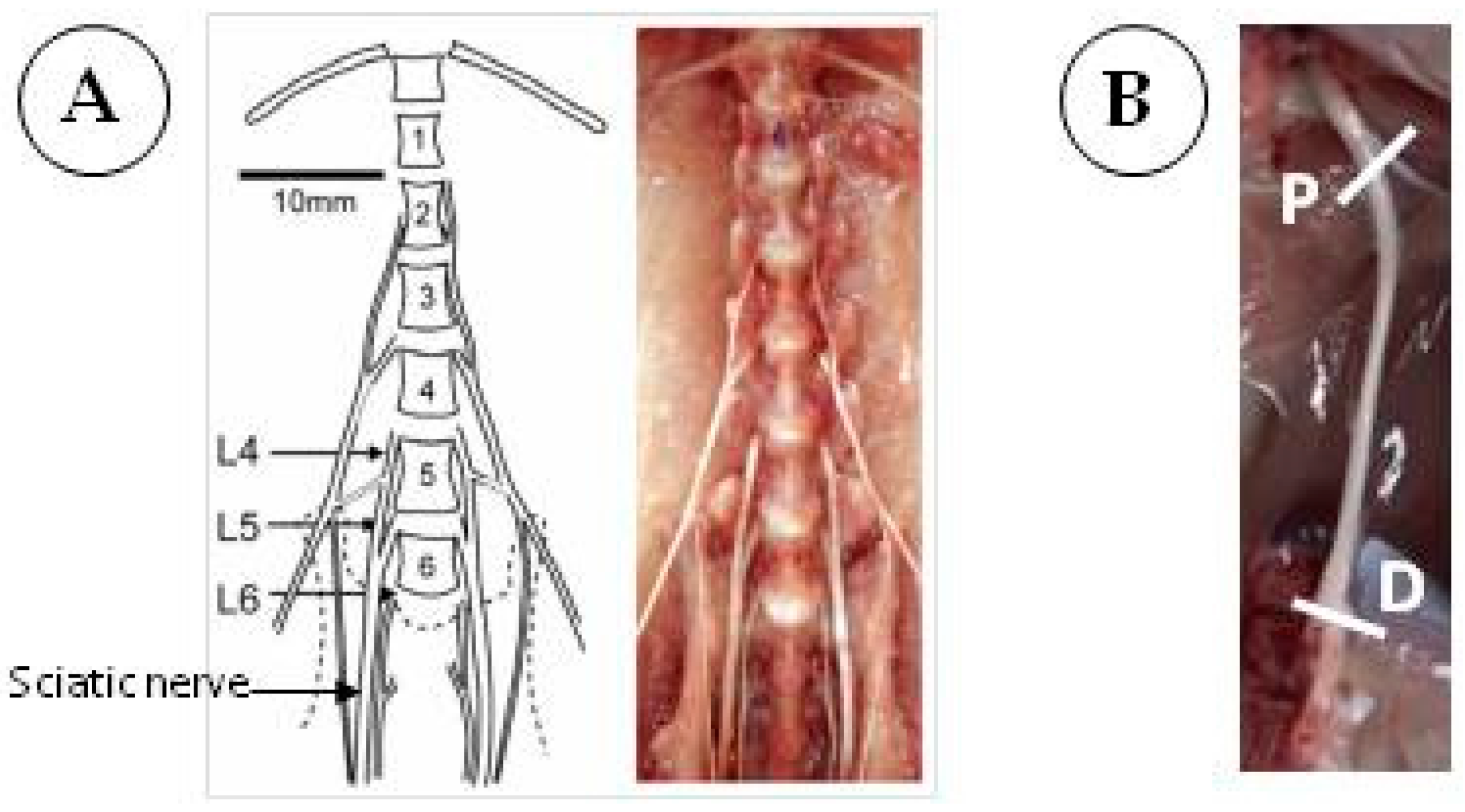 Cells Free Full Text Assessing Autophagy In Sciatic Nerves Of A
