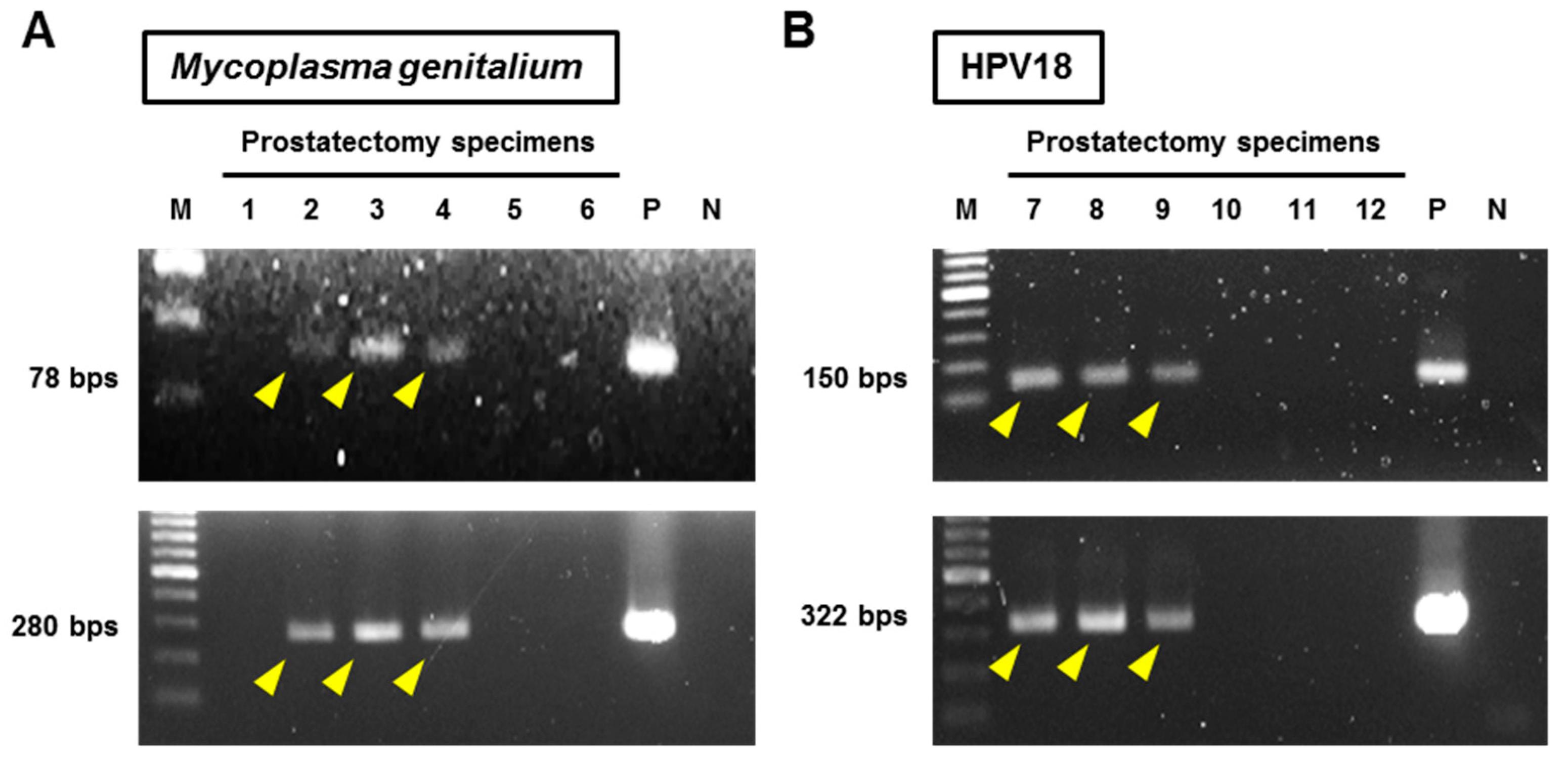 Mycoplasma hominis és Ureaplasma urealyticum tenyésztés genitális váladékból, vizeletből