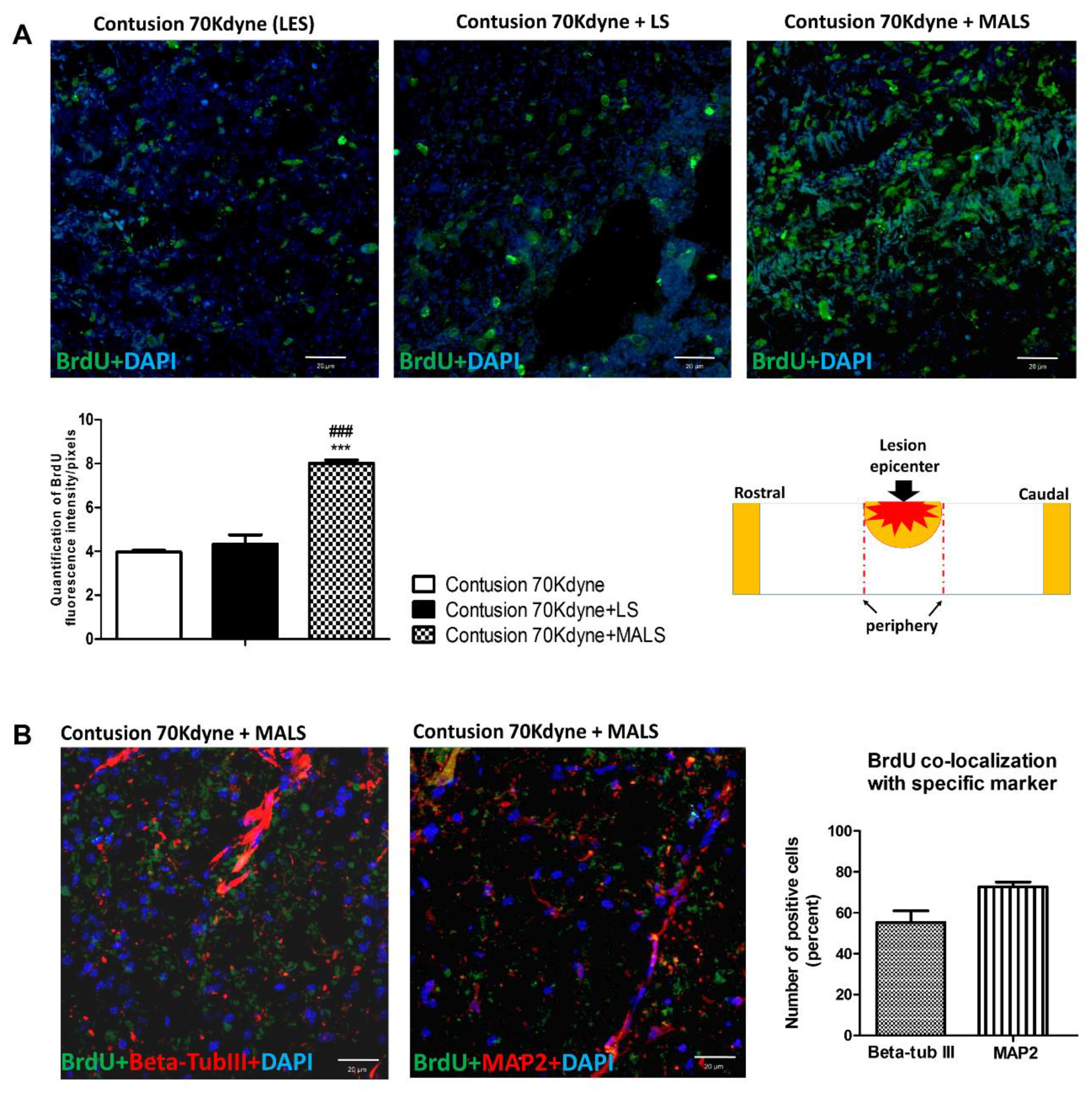 Cells | Free Full-Text | Neuroprotection, Recovery of