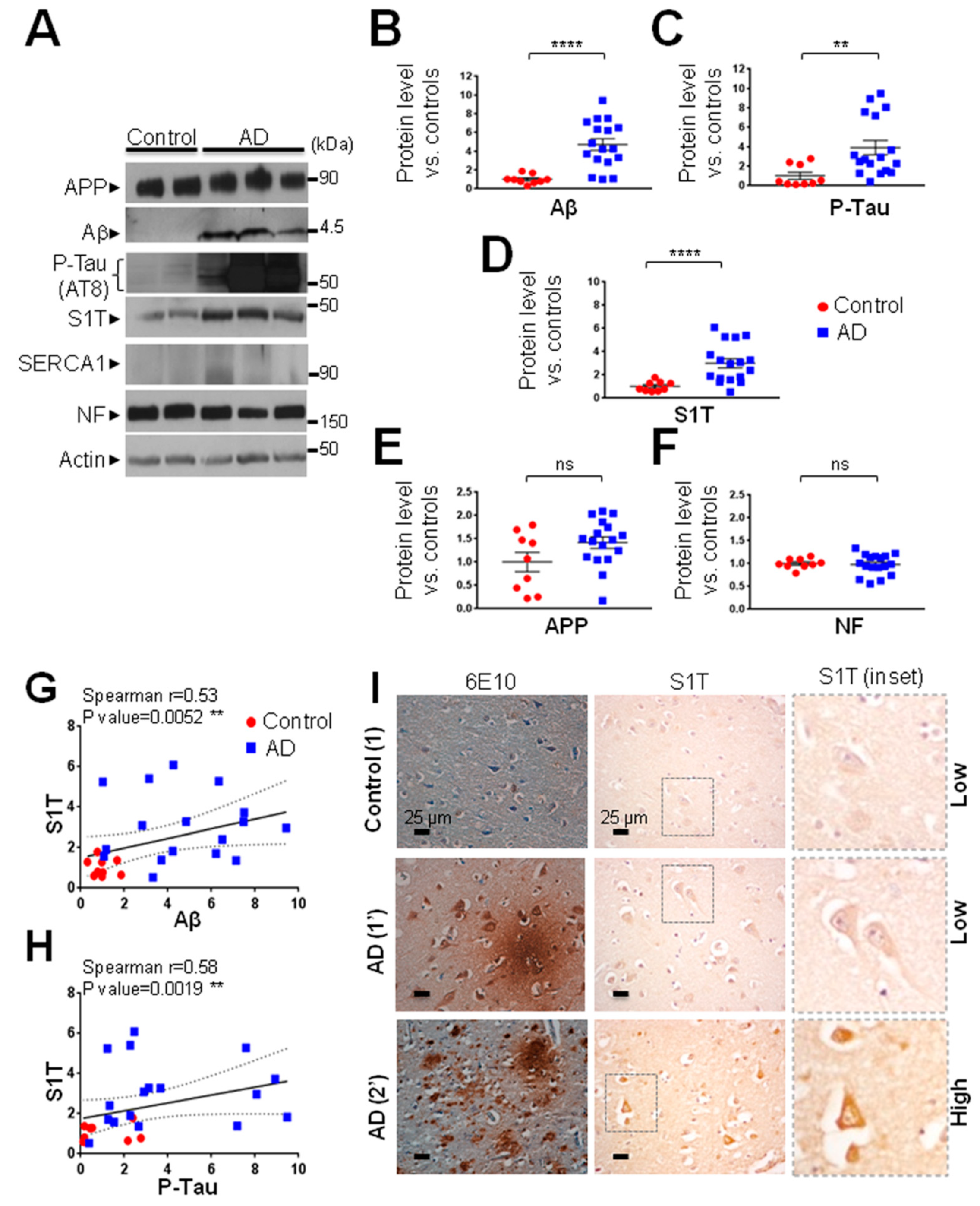 Cells Free Full Text Upregulation Of The Sarco Endoplasmic Reticulum Calcium Atpase 1 Truncated Isoform Plays A Pathogenic Role In Alzheimer S Disease Html