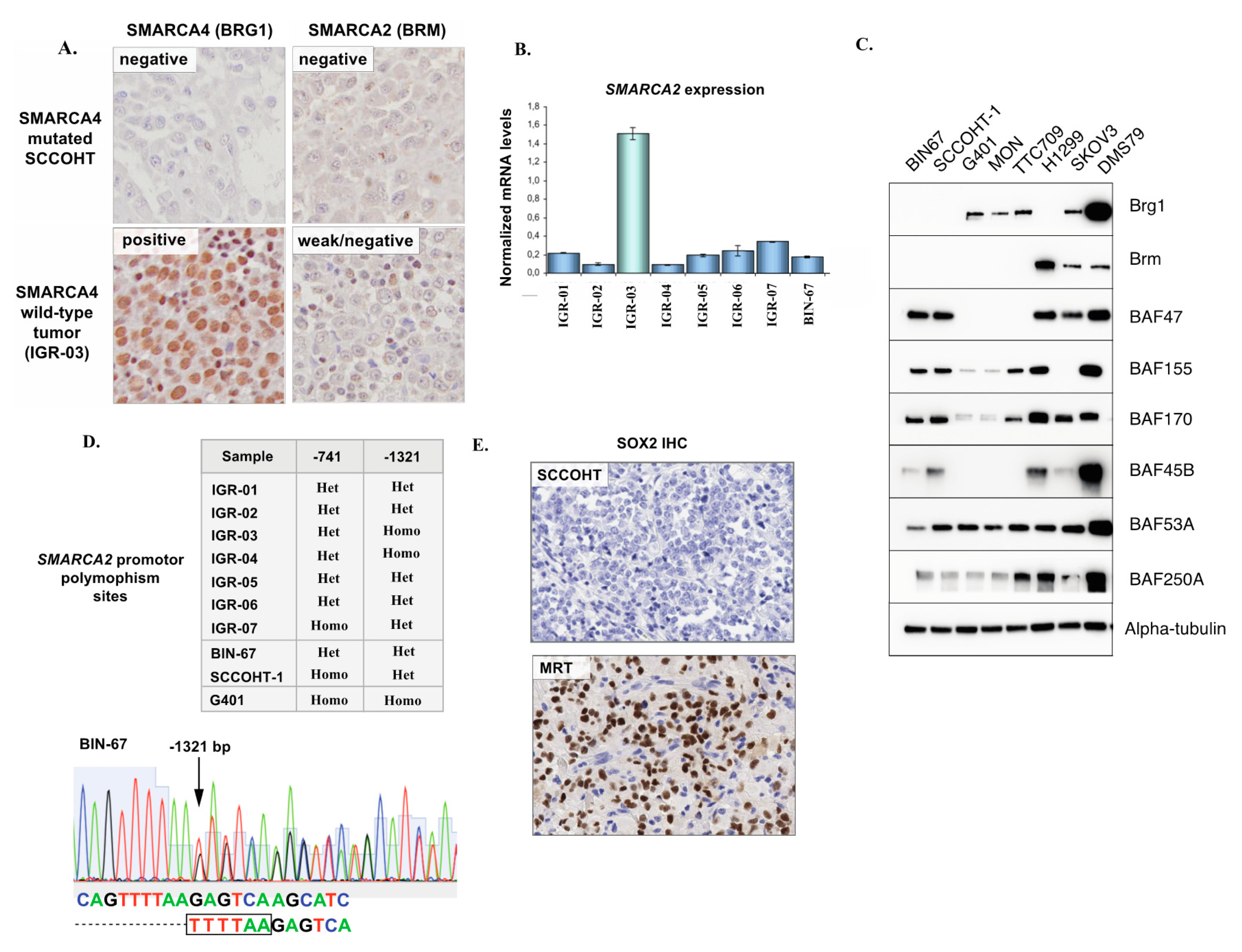 Cells Free Full Text Small Cell Carcinoma Of The Ovary Hypercalcemic Type Sccoht Beyond Smarca4 Mutations A Comprehensive Genomic Analysis