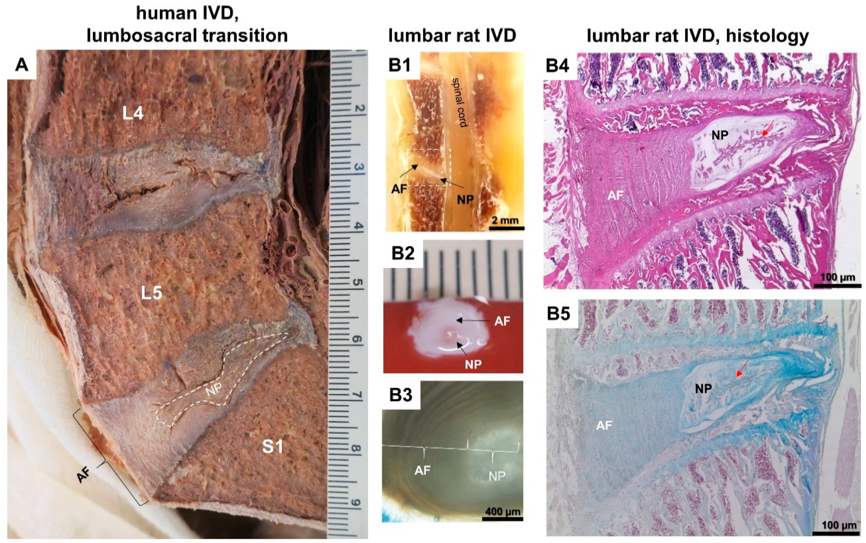 Cells Free Full Text The Relationship Between Diabetes Mellitus Type Ii And Intervertebral Disc Degeneration In Diabetic Rodent Models A Systematic And Comprehensive Review Html