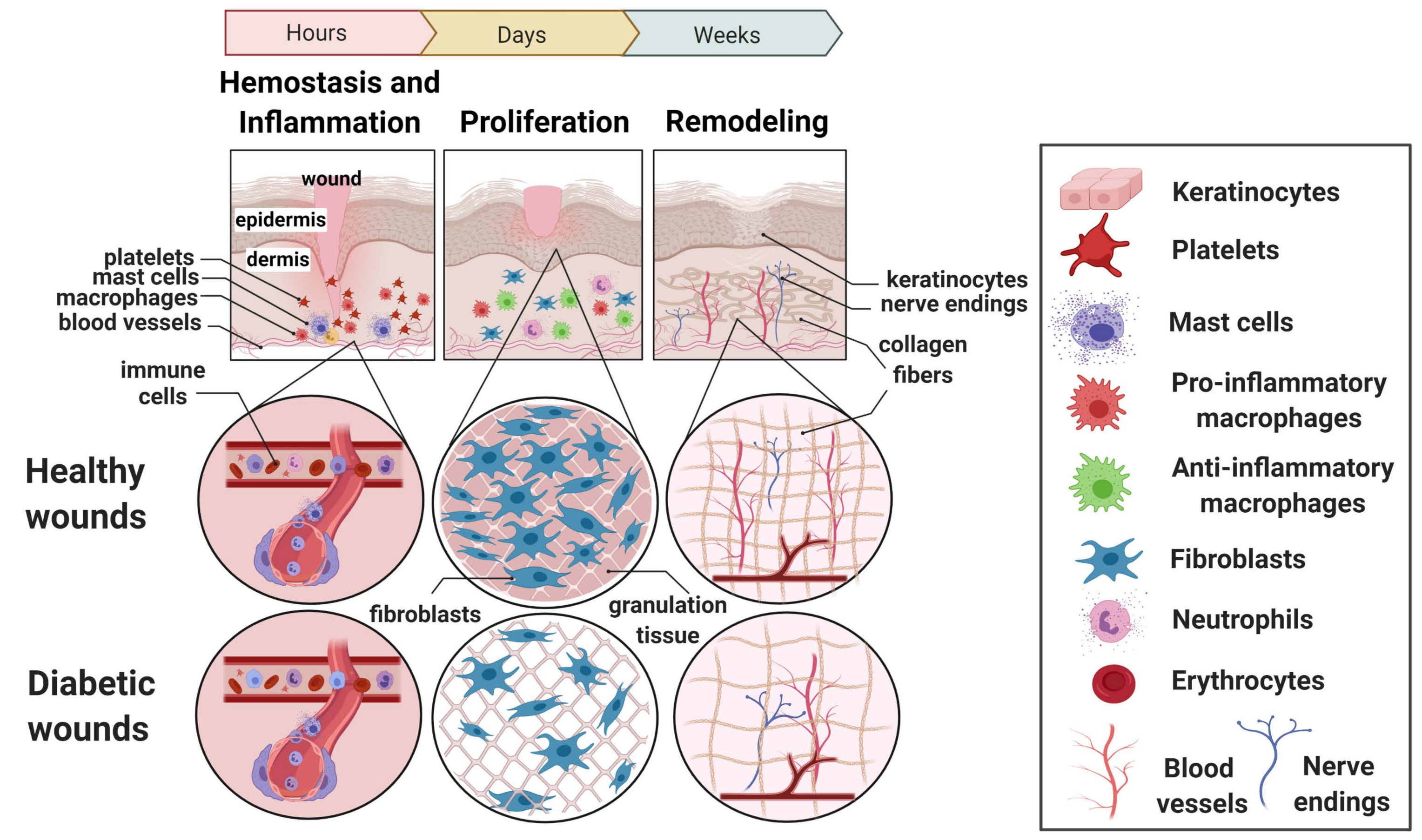 Cells Free Full Text Mechanistic Actions Of Micrornas In Diabetic Wound Healing Html