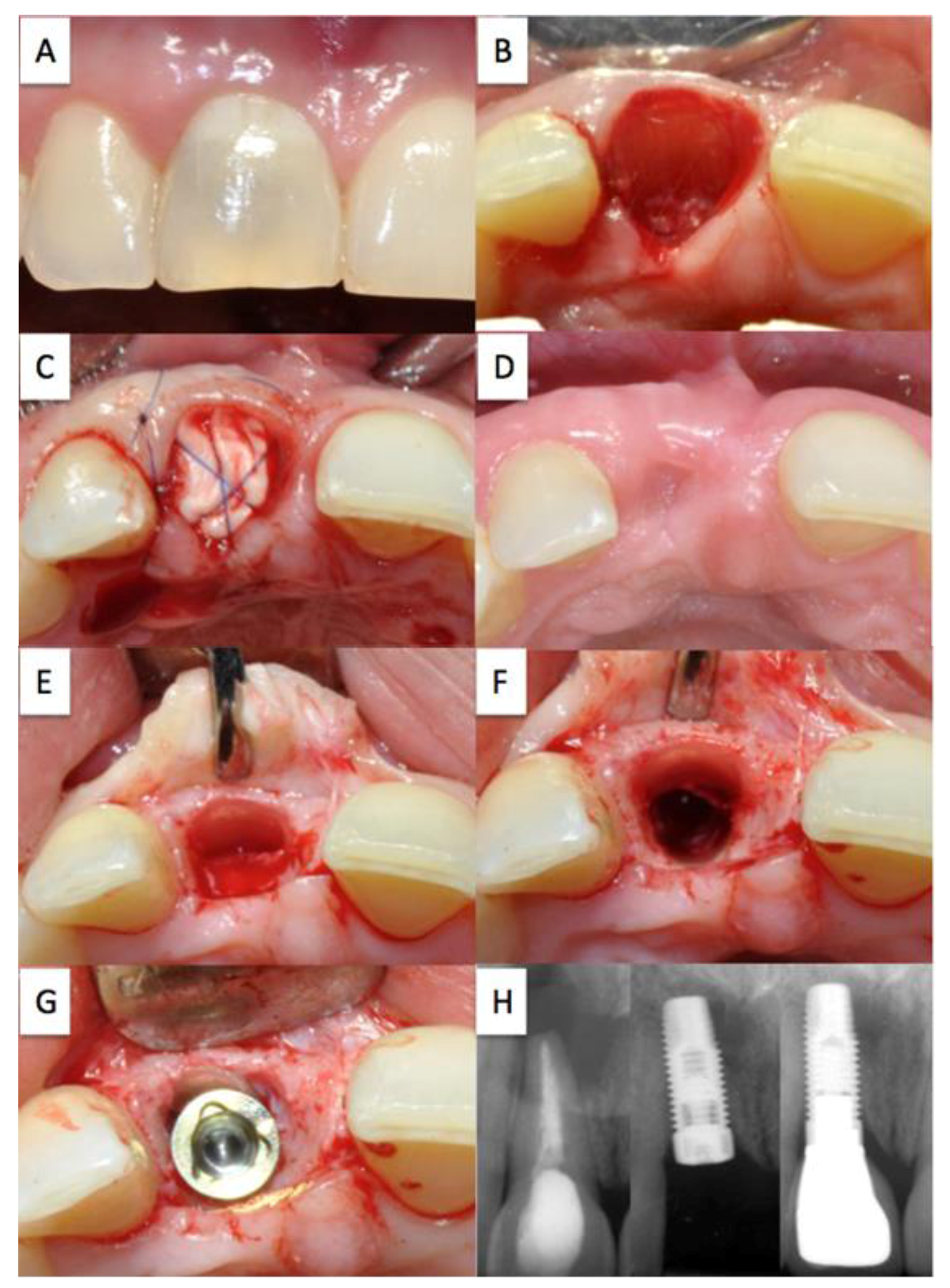 how to clean a tooth extraction hole