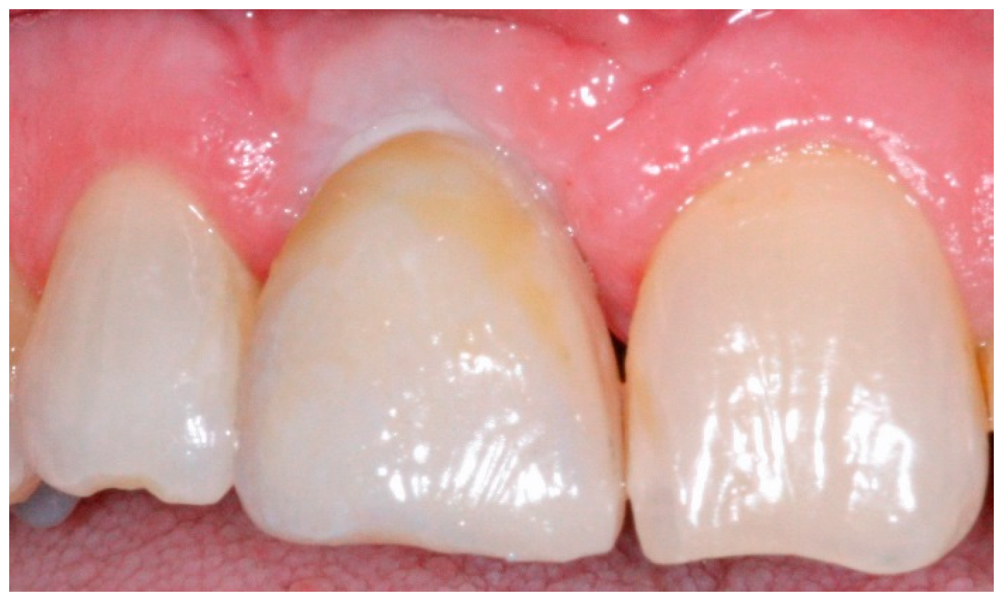 Dentistry Journal | Free Full-Text | A Simplified Technique