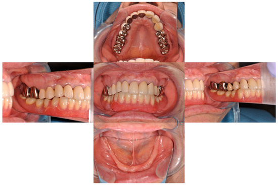 Magnet-Retained Two-Mini-Implant Overdenture: Clinical and Mechanical Consideration
