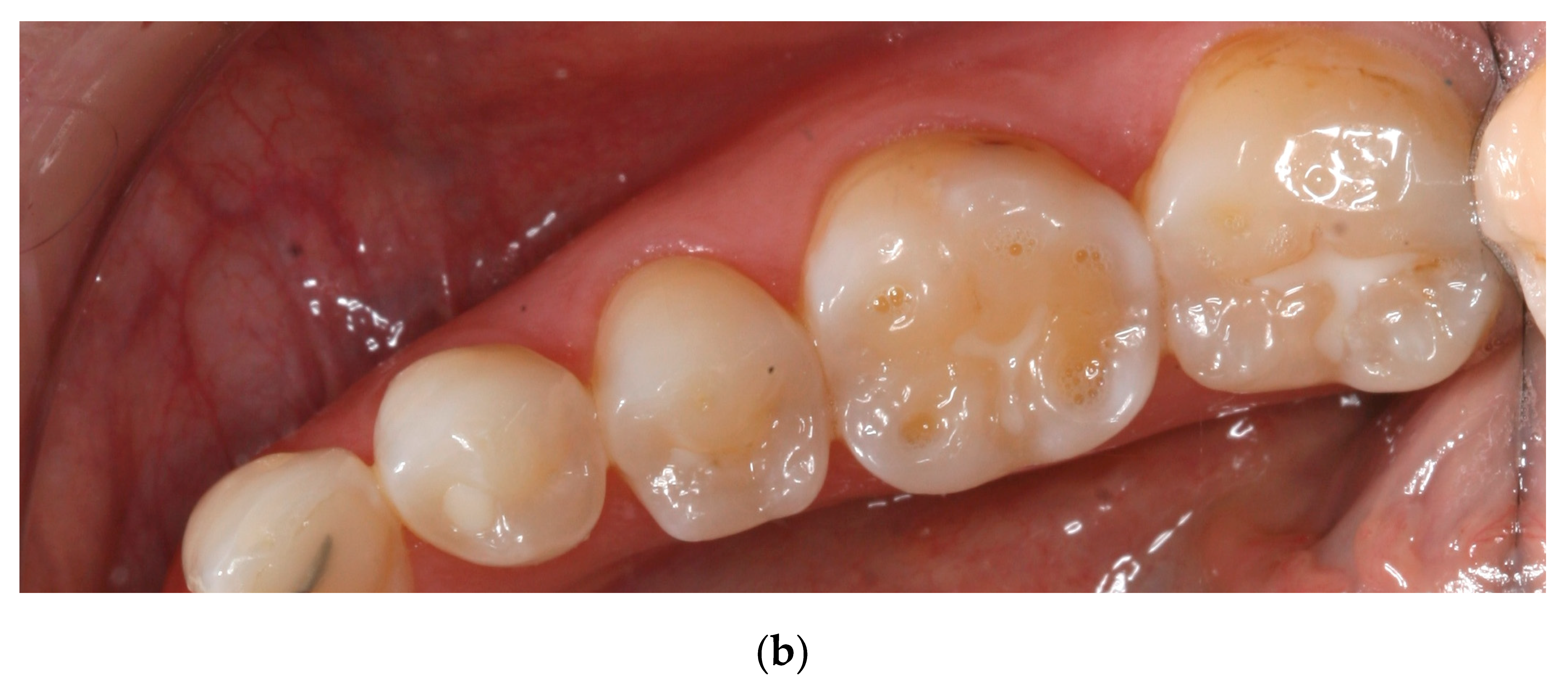 Dentistry Journal Free Full Text Erosive And