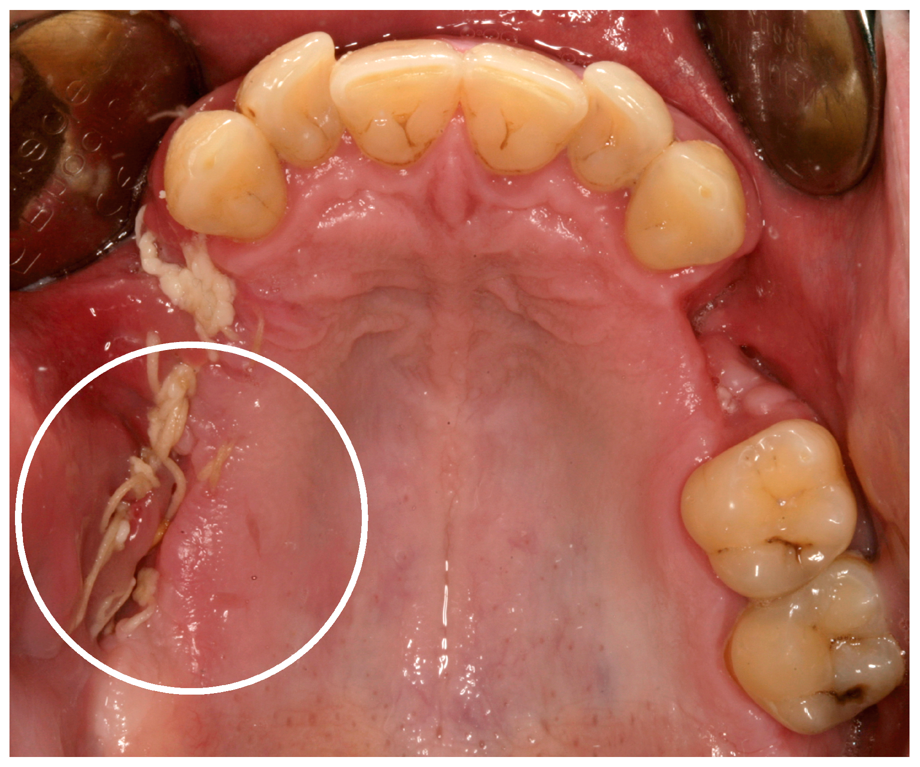 Dentistry Journal Free Full Text Meth Mouth A Growing Epidemic In Dentistry Html