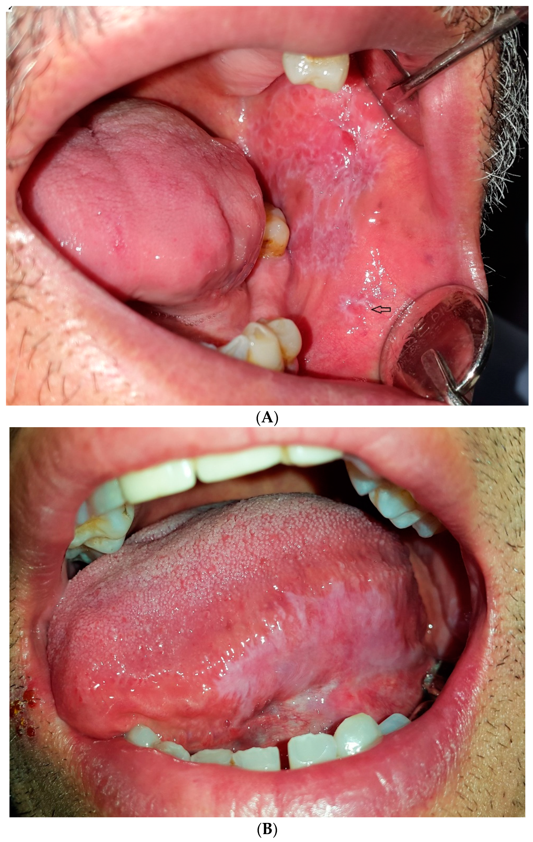 Dentistry Journal Free Full Text Oral White Lesions An