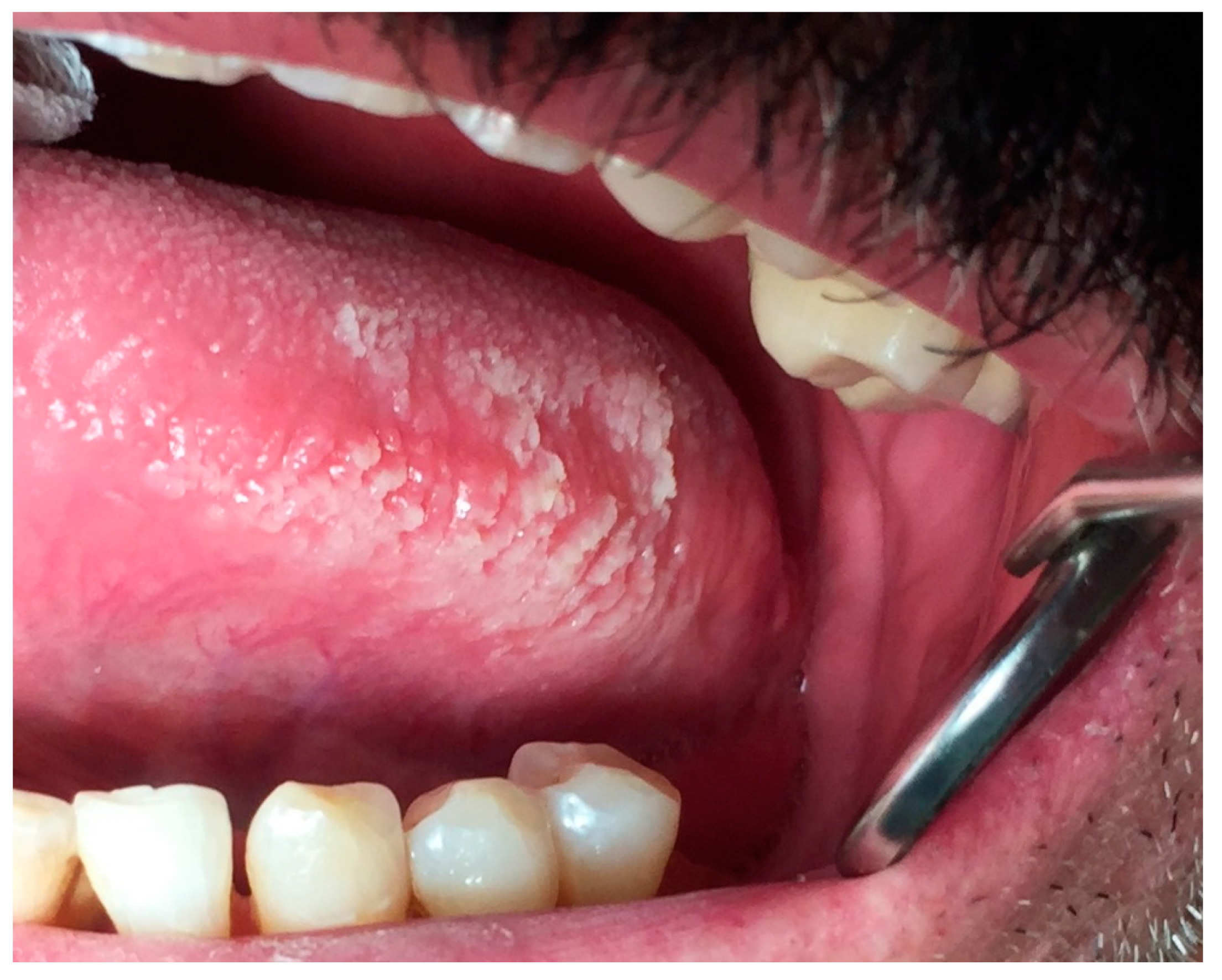 Dentistry Journal | Free Full-Text | Oral White Lesions: An Updated