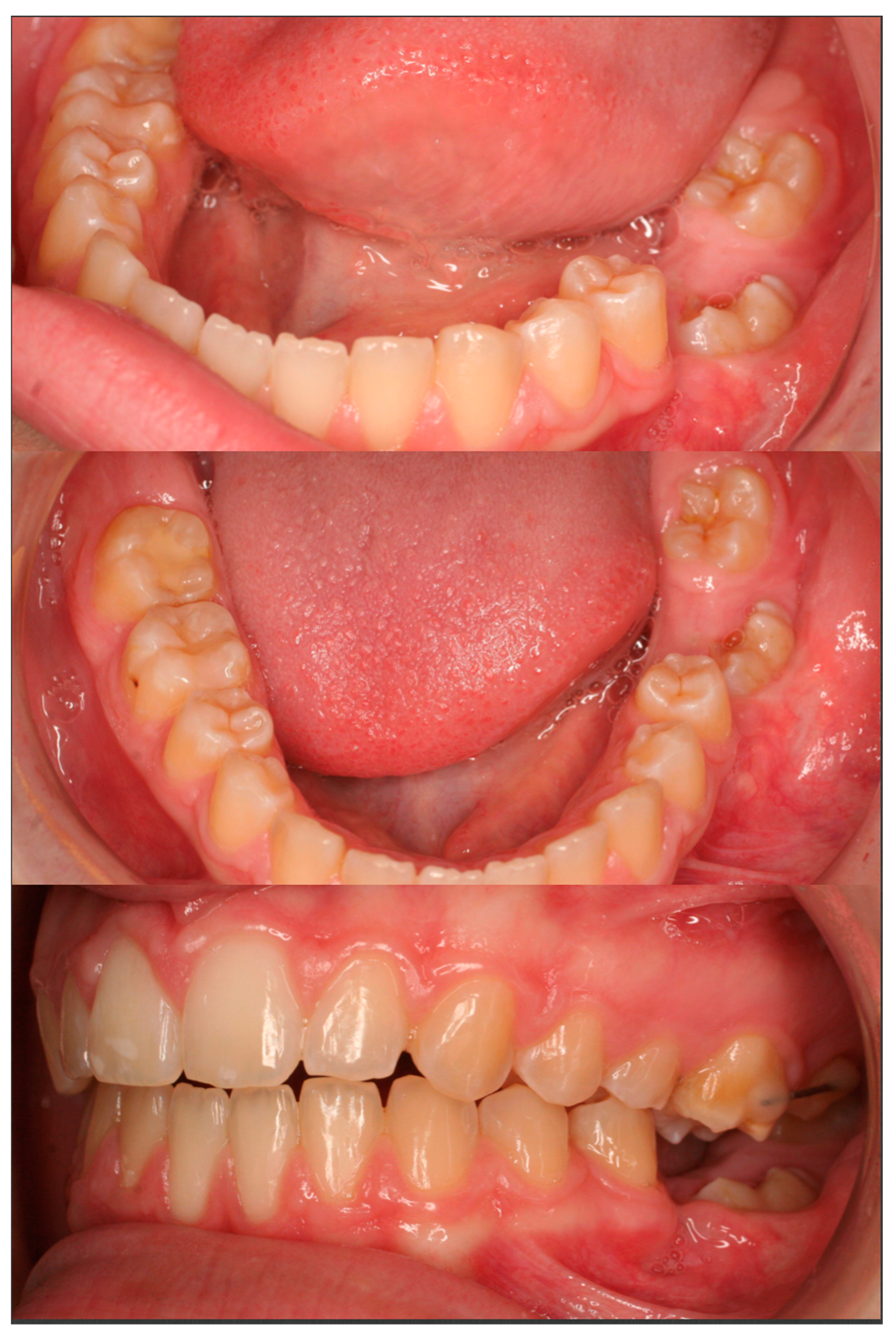 Dentistry Journal | Free Full-Text | Uprighting an Impacted