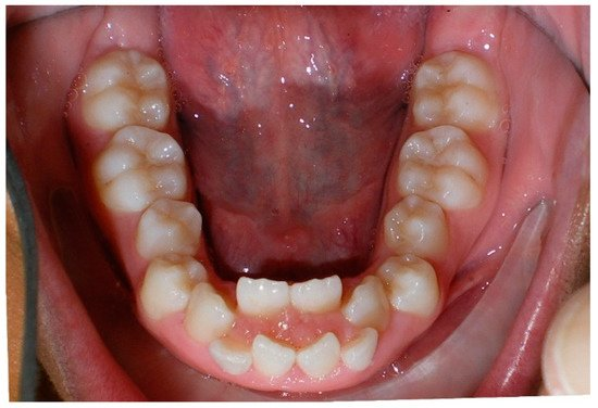 Dentistry Journal | An Open Access Journal from MDPI