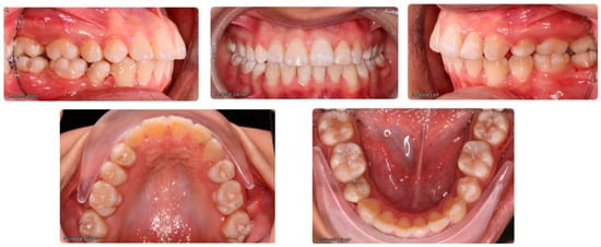 Dentistry Journal   An Open Access Journal from MDPI