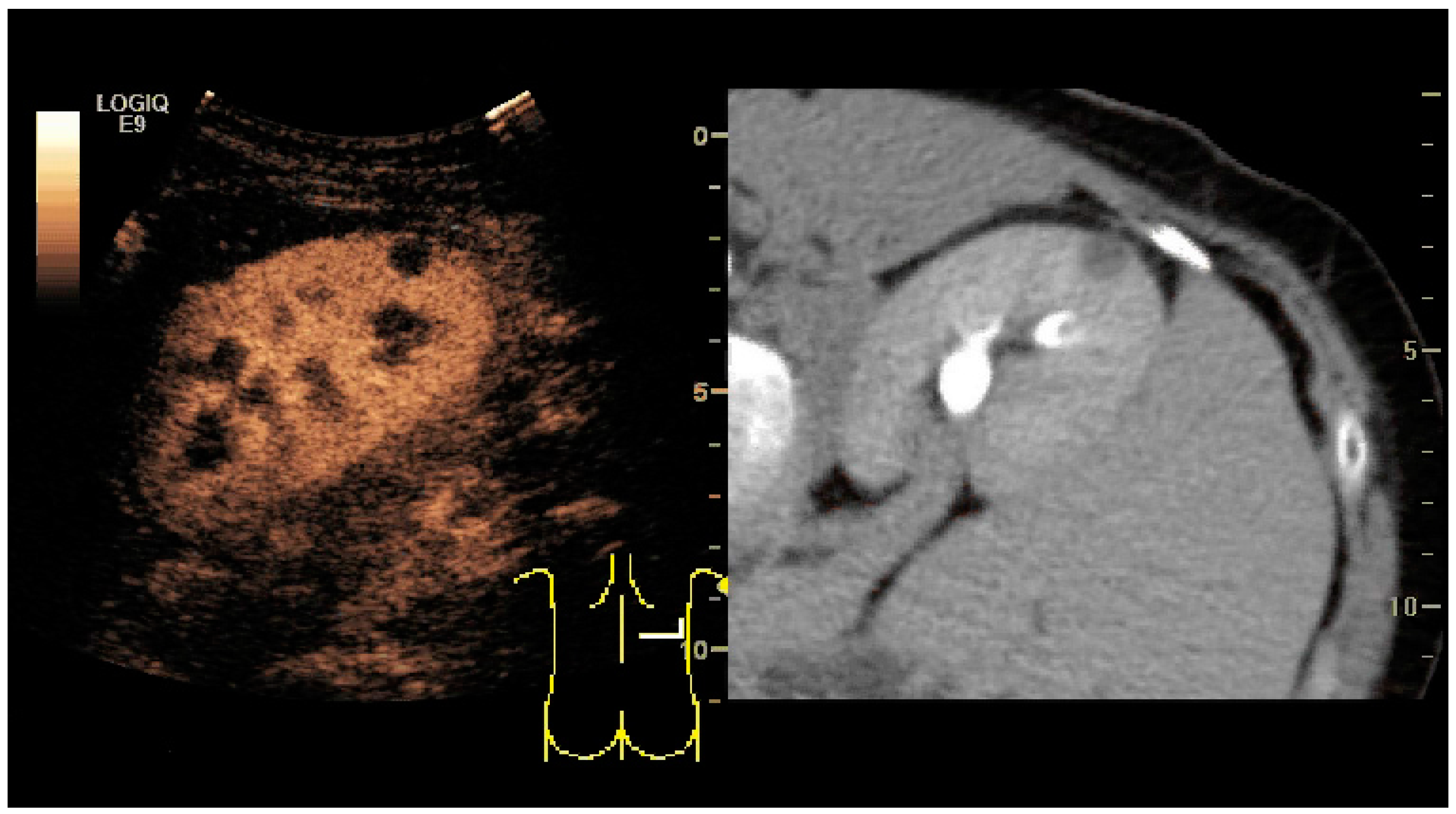 Diagnostics | Free Full-Text | Ultrasonography of the Kidney