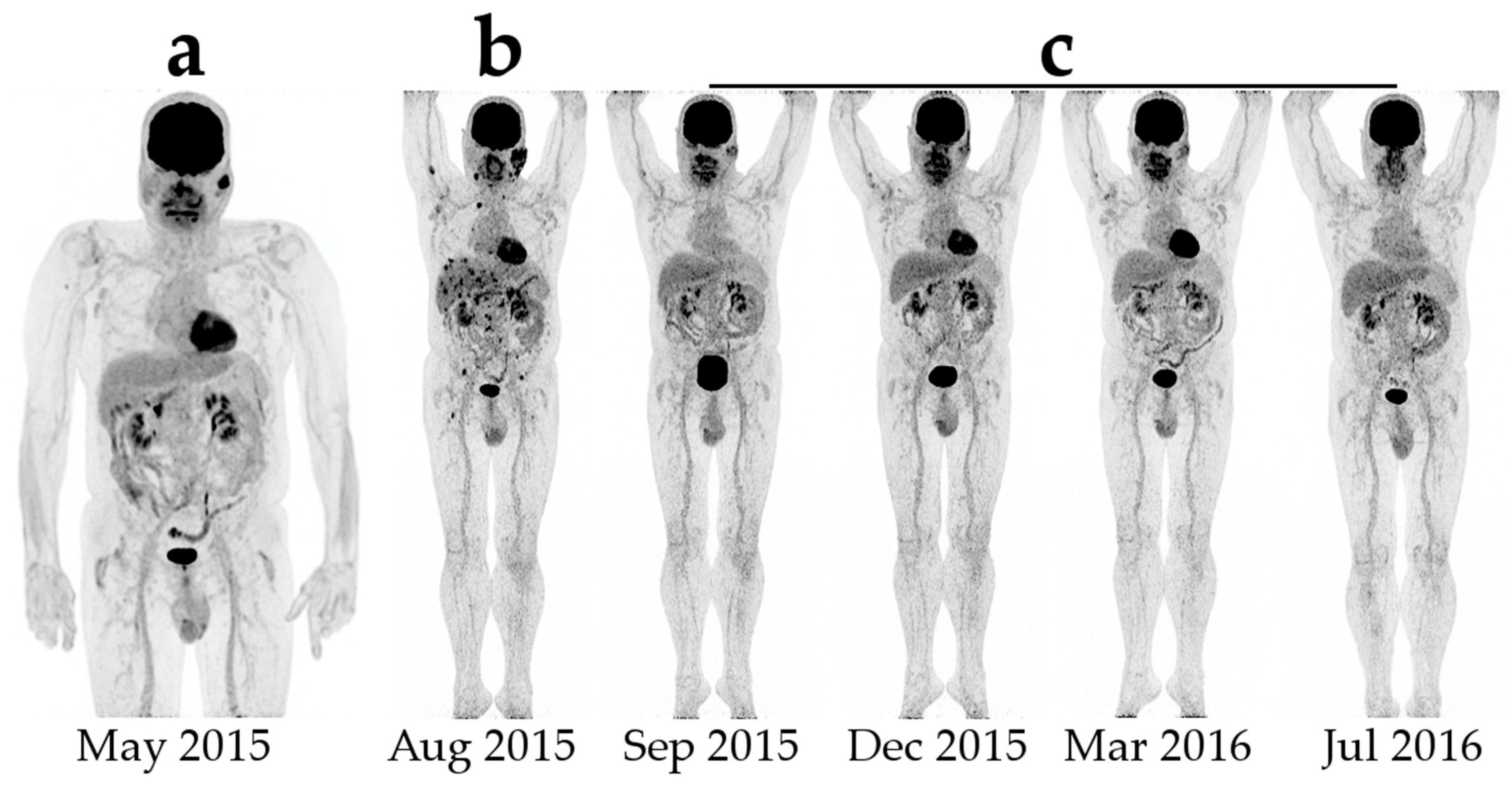 Diagnostics Free Full Text Nuclear Molecular Imaging