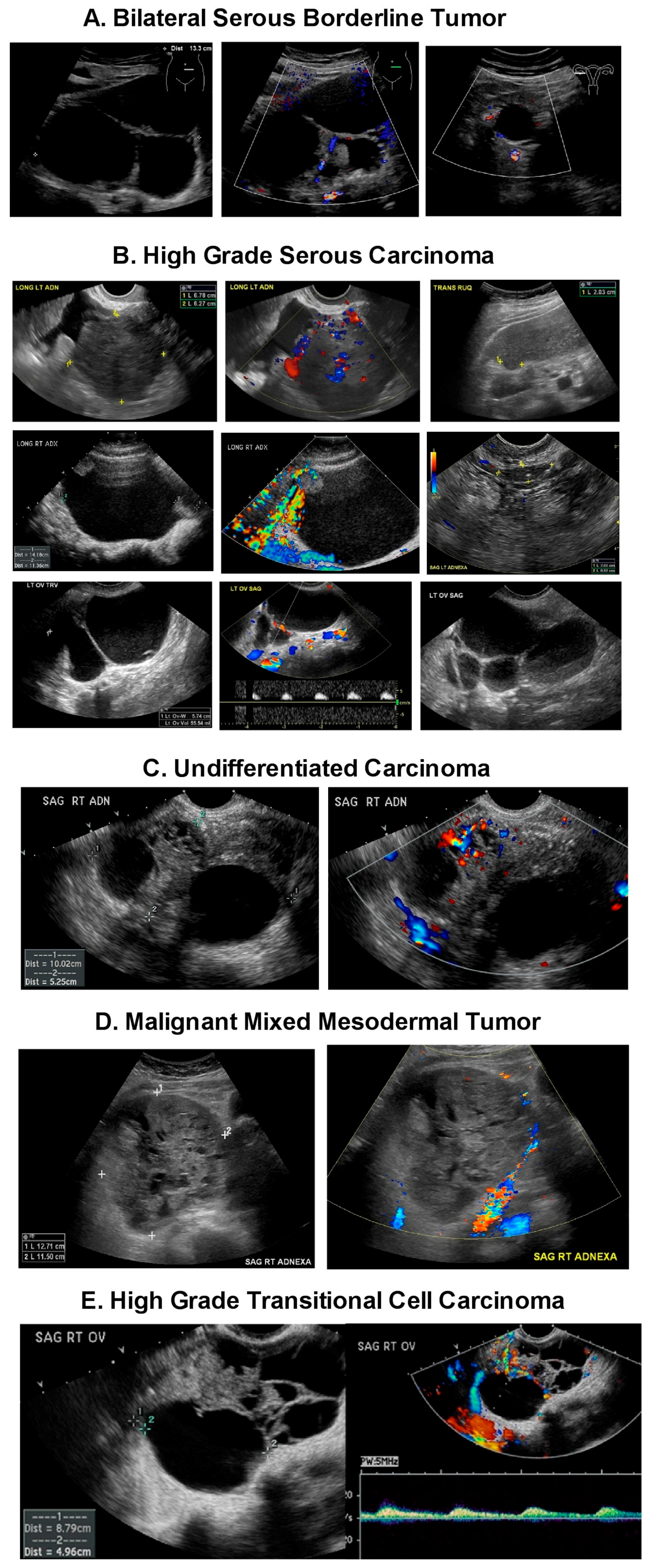 Diagnostics Free Full Text Ultrasound Monitoring Of Extant Adnexal Masses In The Era Of Type 1 And Type 2 Ovarian Cancers Lessons Learned From Ovarian Cancer Screening Trials Html