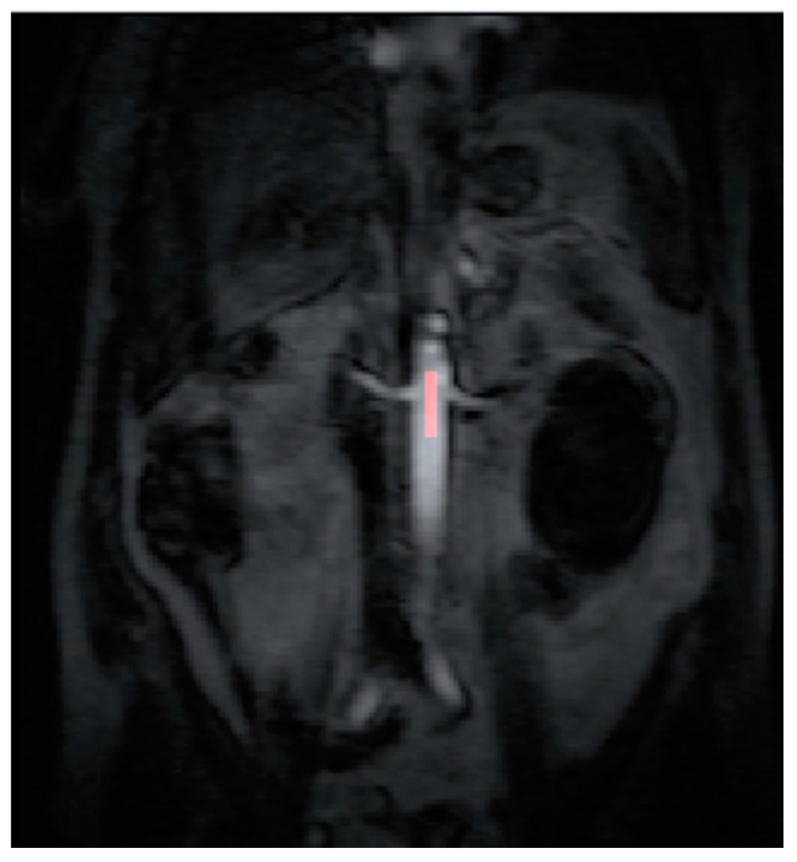 doppelanlage arteria renalis