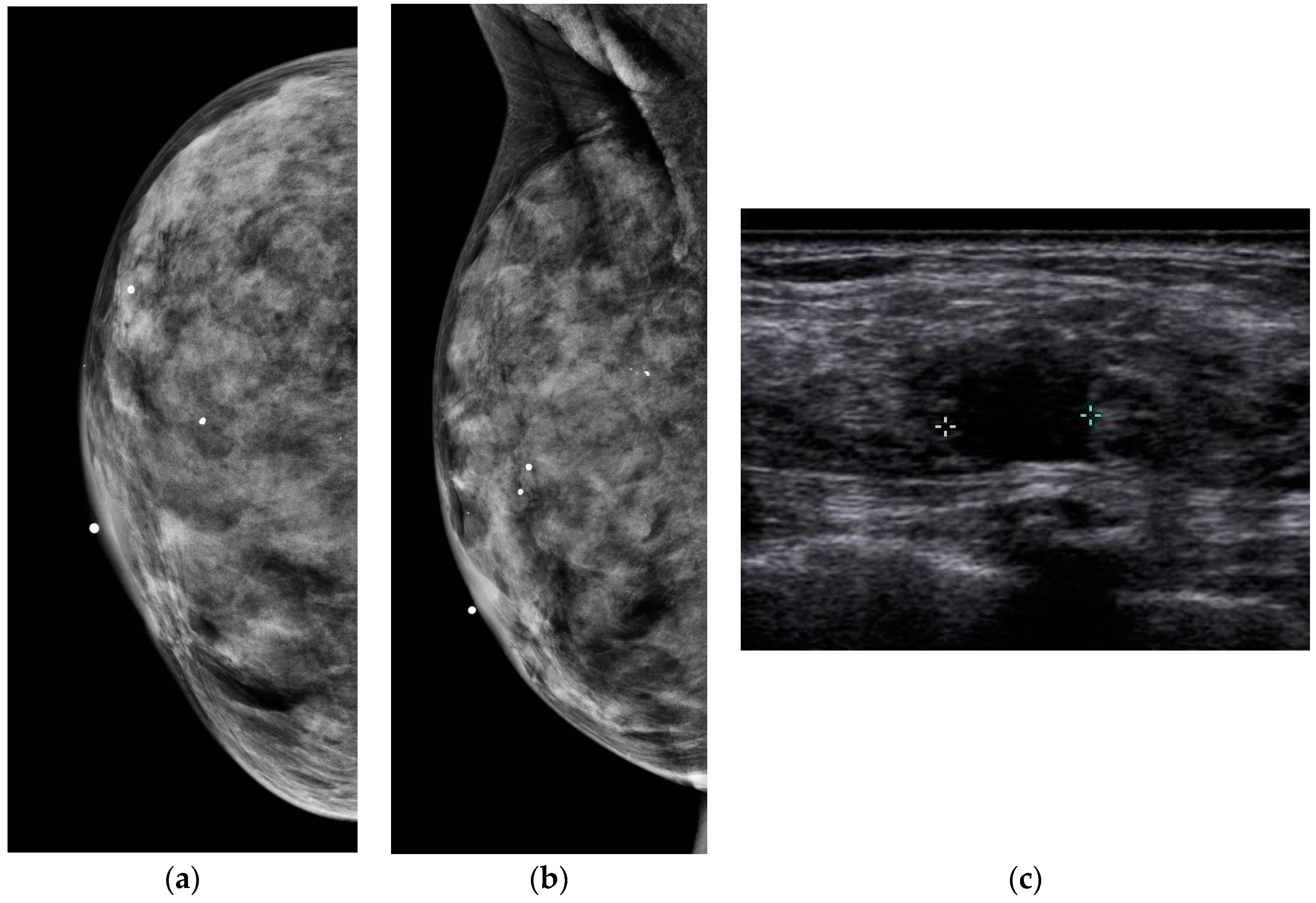 Diagnostics Free Full Text The Role Of Ultrasound In Screening Dense Breasts A Review Of The Literature And Practical Solutions For Implementation Html