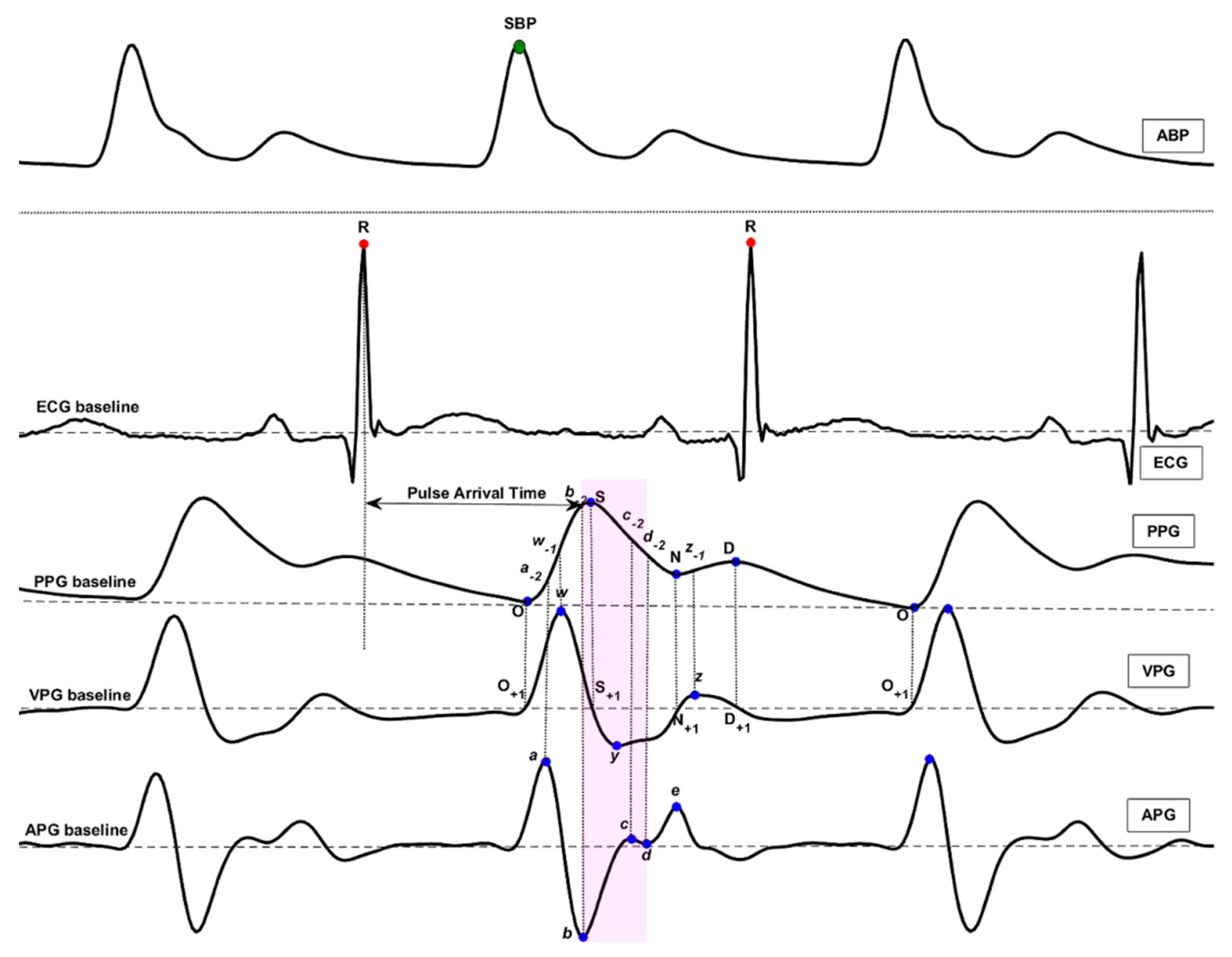 Diagnostics | Free Full-Text | Hypertension Assessment via ECG and