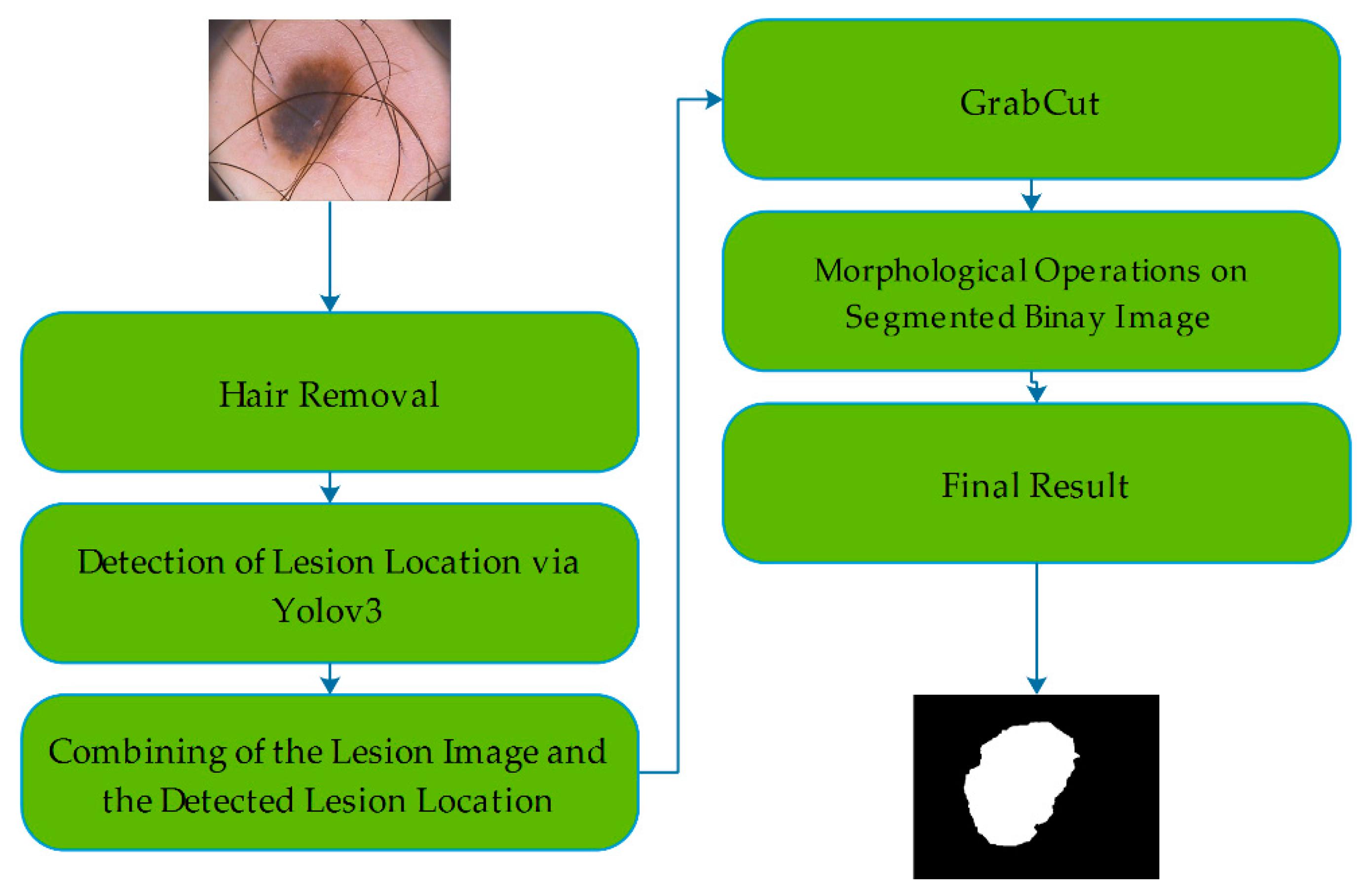 Diagnostics | Free Full-Text | Skin Lesion Segmentation in
