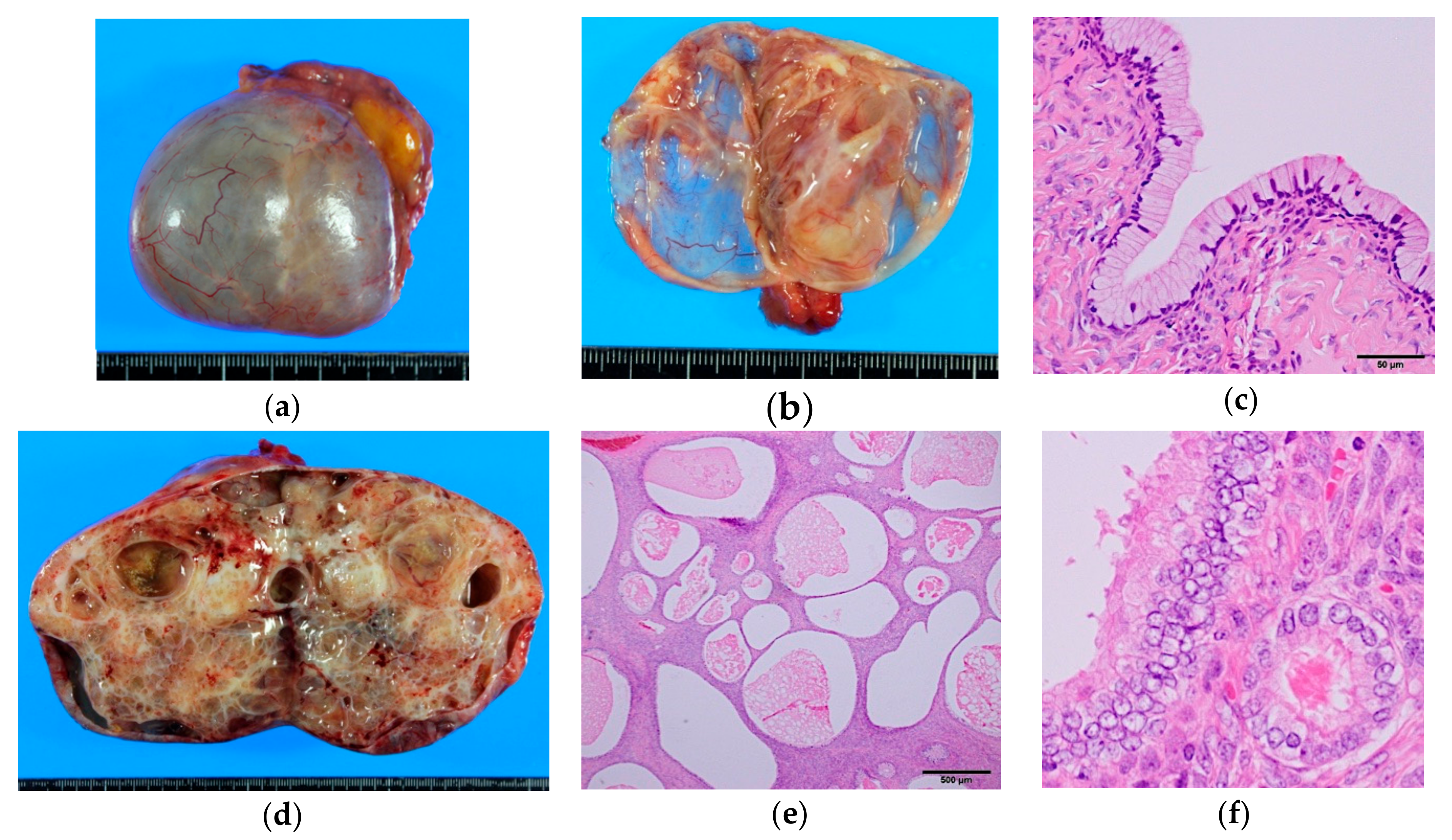 ovarian cancer mucinous)