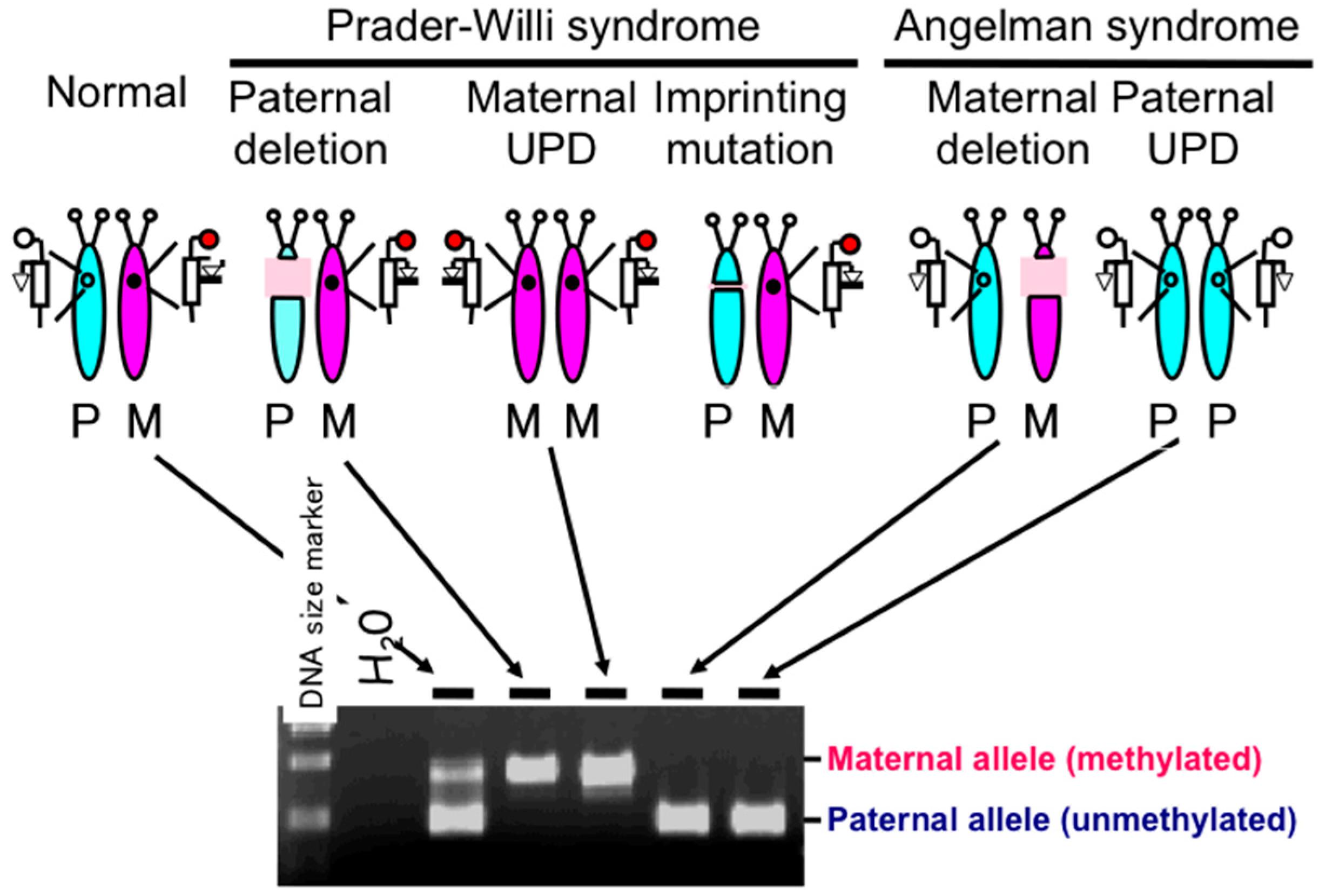 diseases free fulltext praderwilli syndrome the