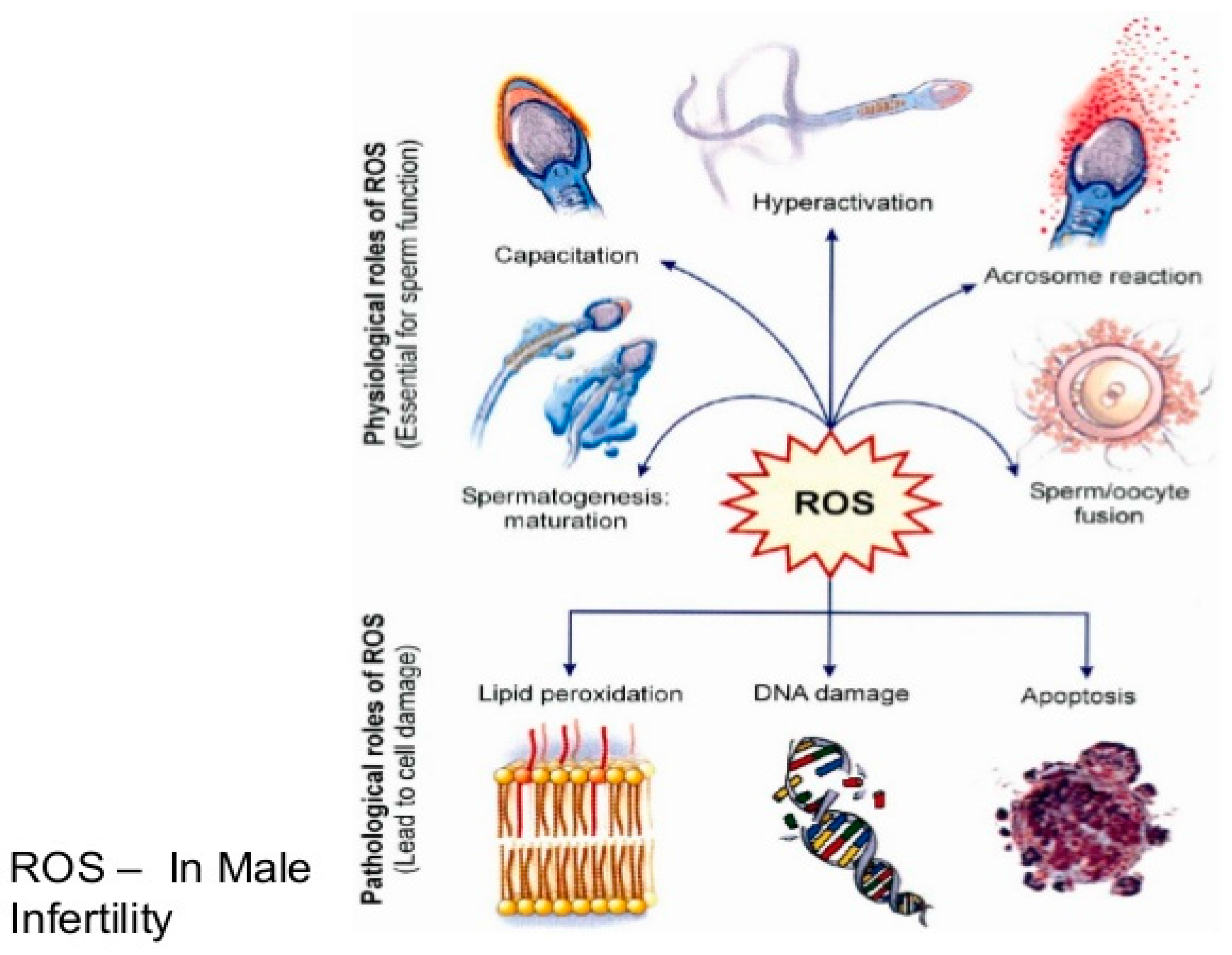 Diseases | Free Full-Text | Male Infertility: The Effect of Natural