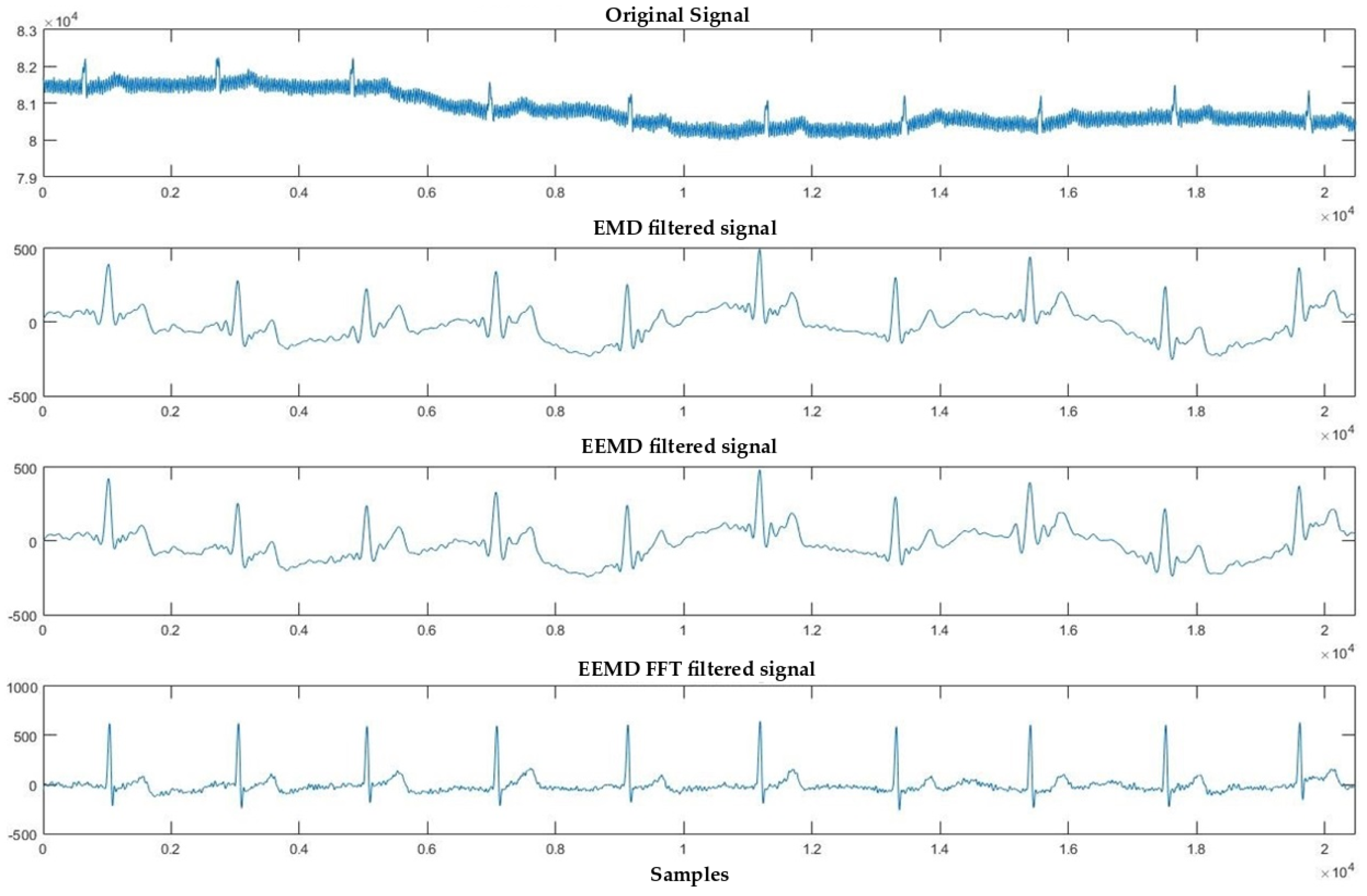 ecg denoising Different ecg denoising techniques an ecg signal recorded from a human body may contain different types of interferences proper denoising of ecg.