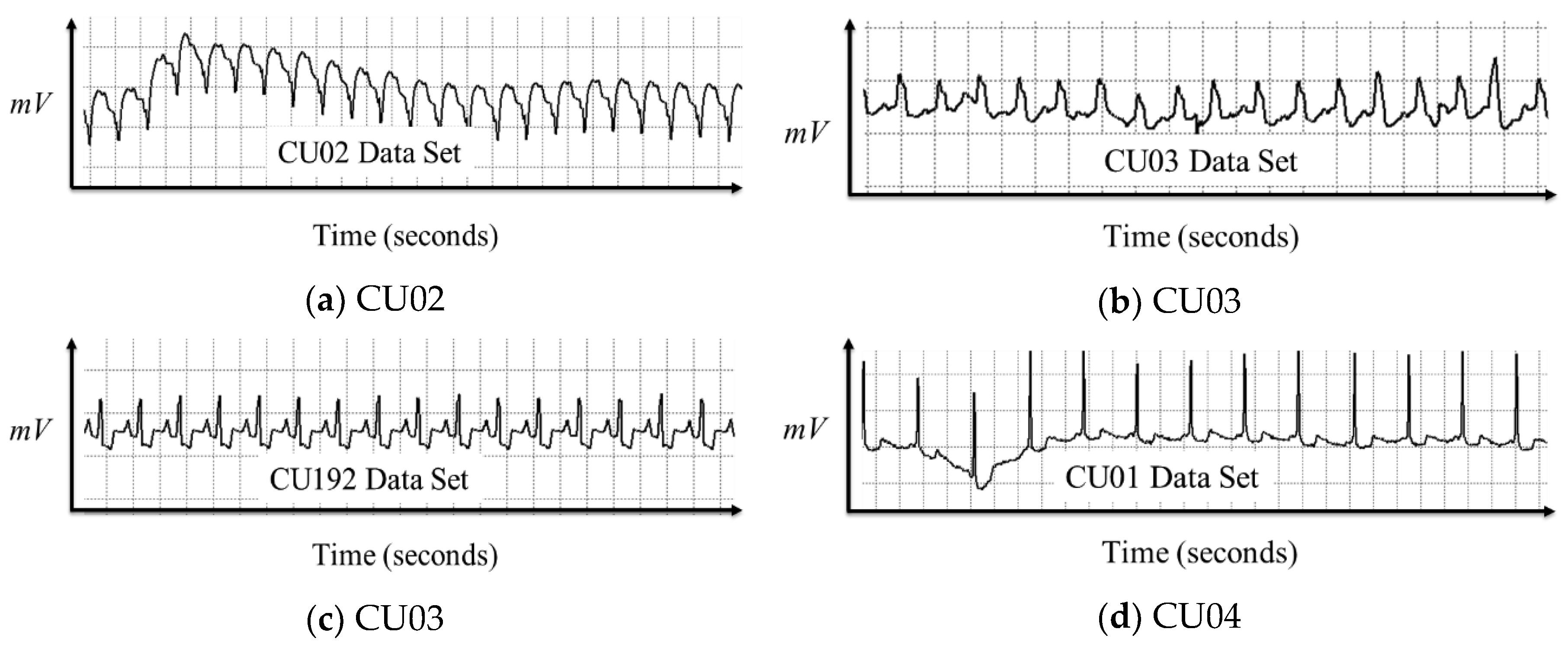Electronics   Free Full-Text   Real-Time Ventricular Fibrillation