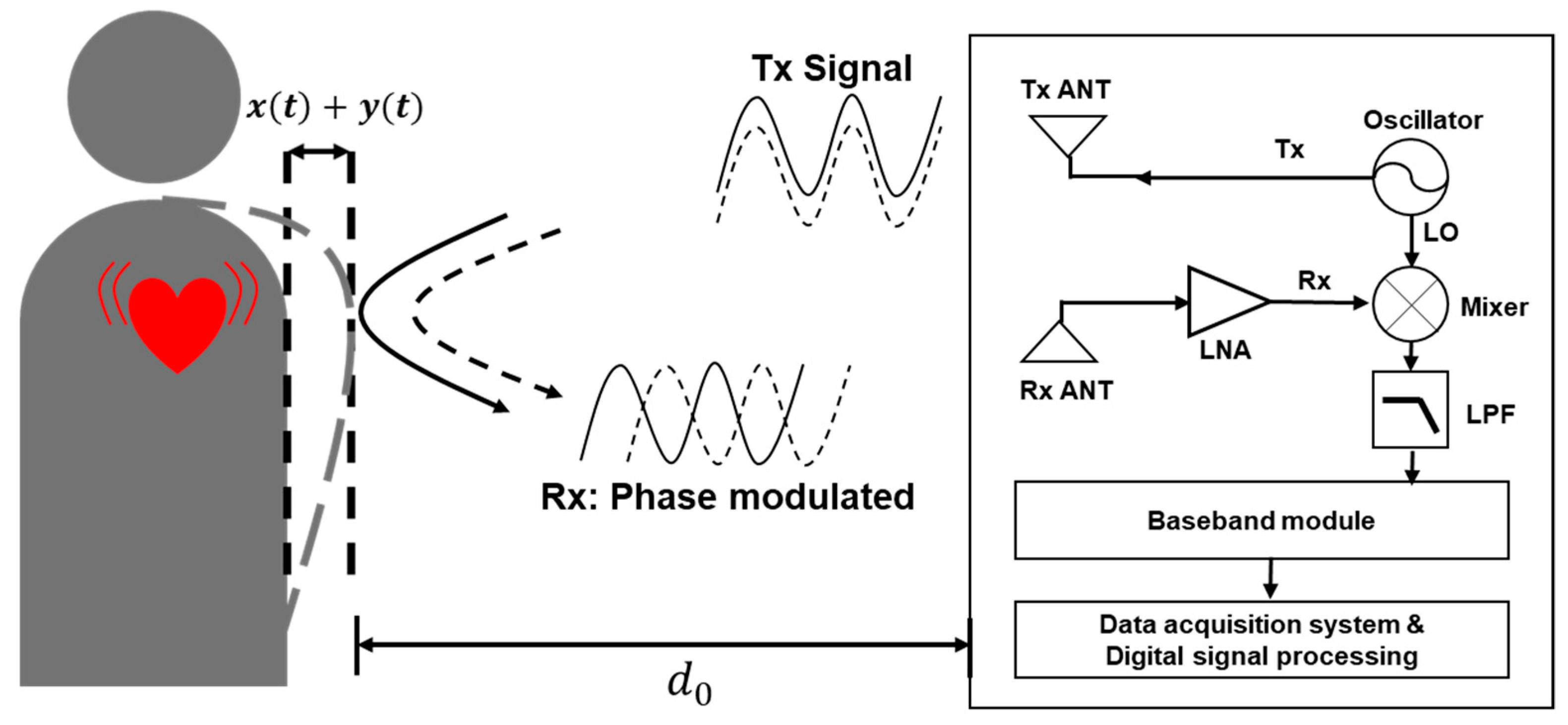 Electronics | Free Full-Text | 915-MHz Continuous-Wave Doppler Radar