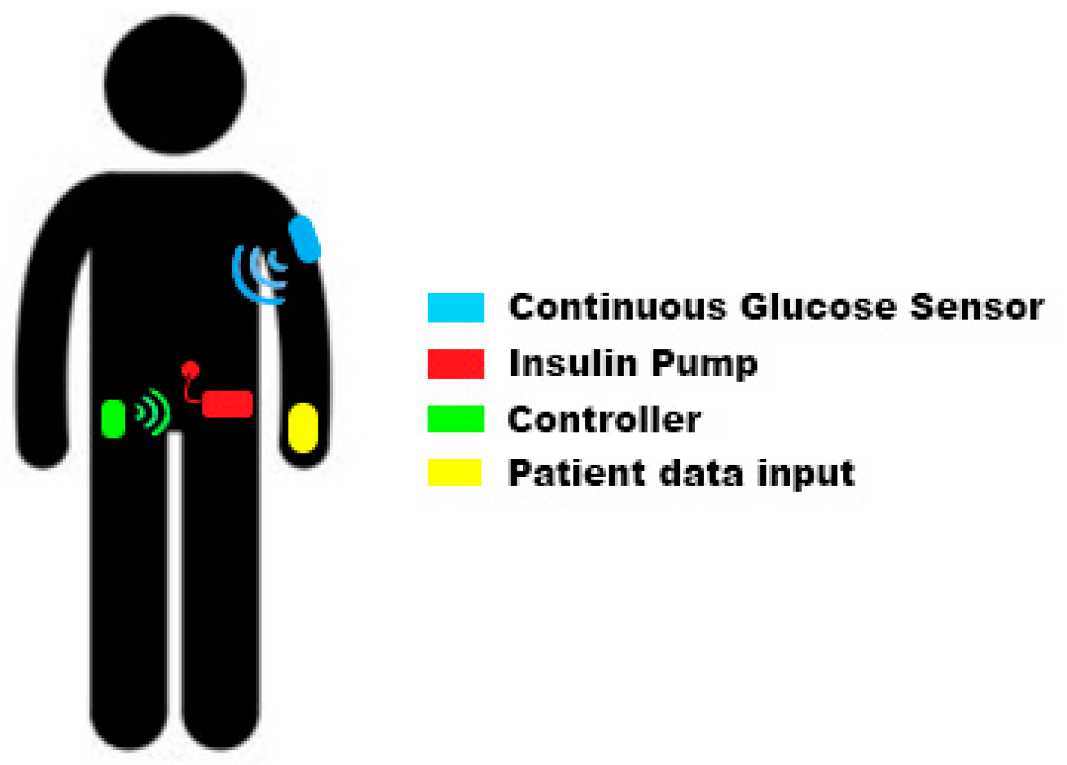 Electronics | Free Full-Text | A Wearable Closed-Loop Insulin