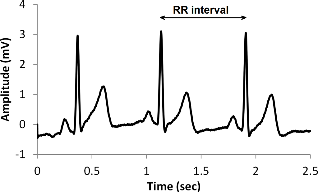 entropy free text a comparison of nonlinear measures for the detection of cardiac