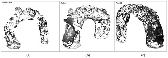 Fluids | Special Issue : Fluid Mechanics and Heat Transfer in