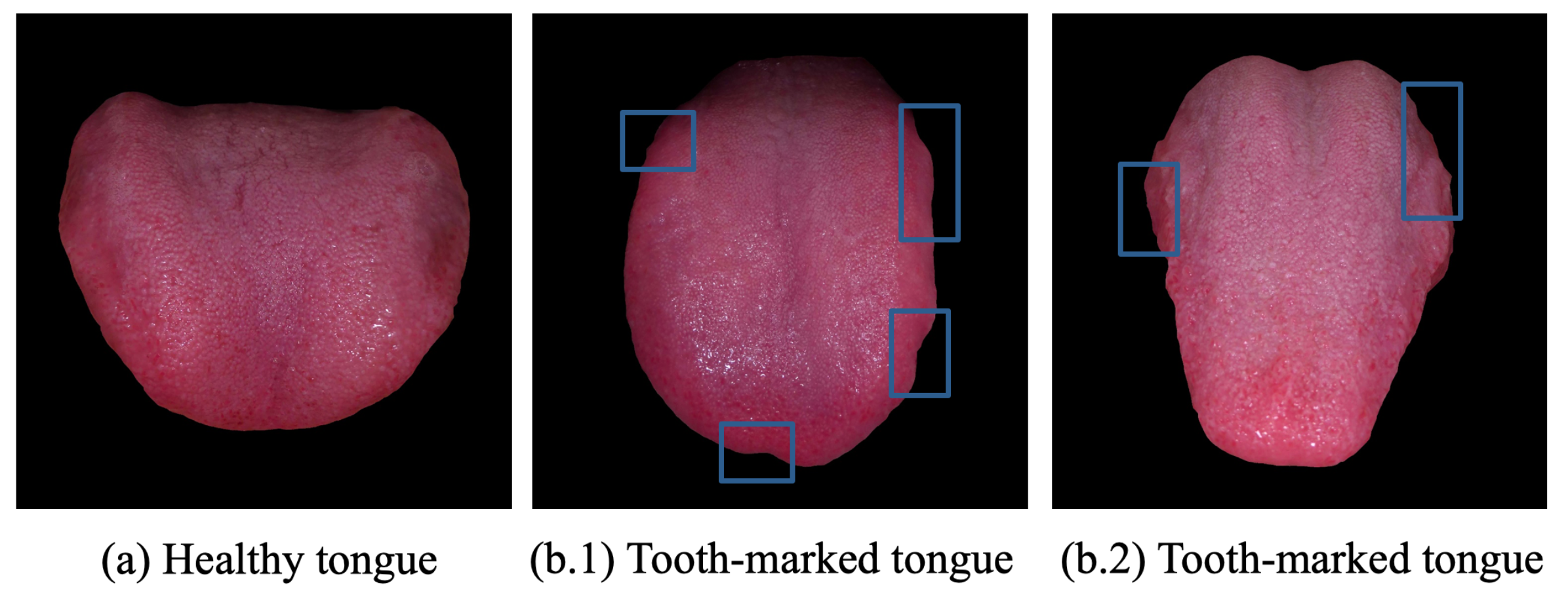 Future Internet   Free Full-Text   Tooth-Marked Tongue