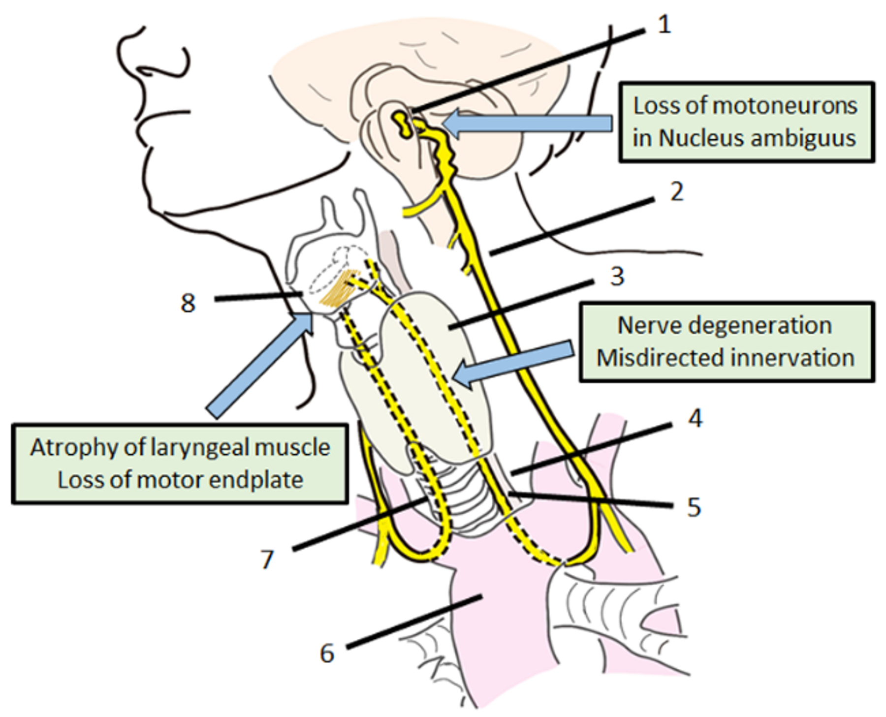 Genes | Free Full-Text | Gene Therapy for Recurrent Laryngeal Nerve ...