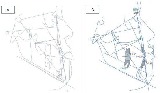 Heng Wiring Diagram