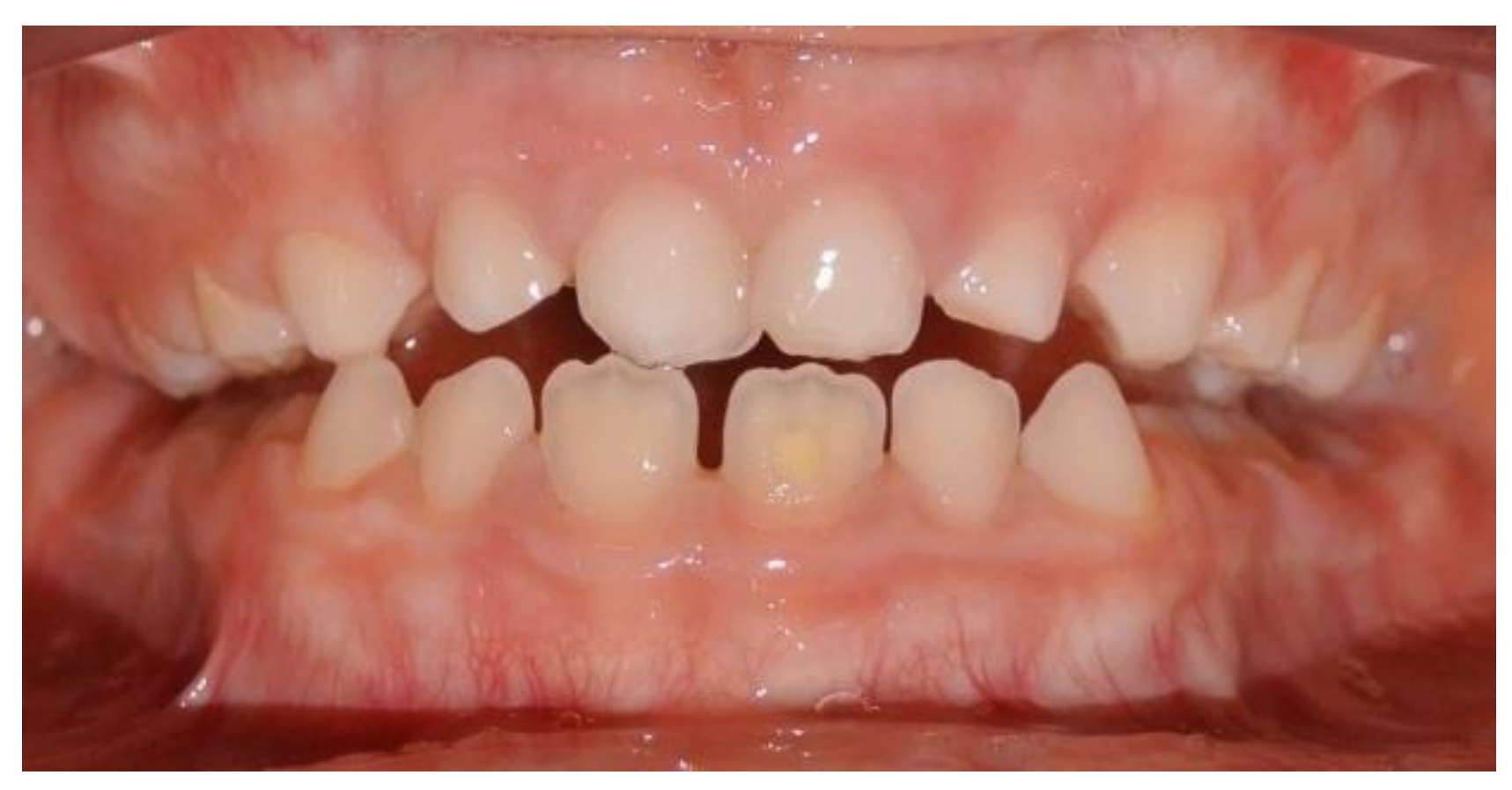 Ijerph Free Full Text Early Treatment Of Anterior Crossbite