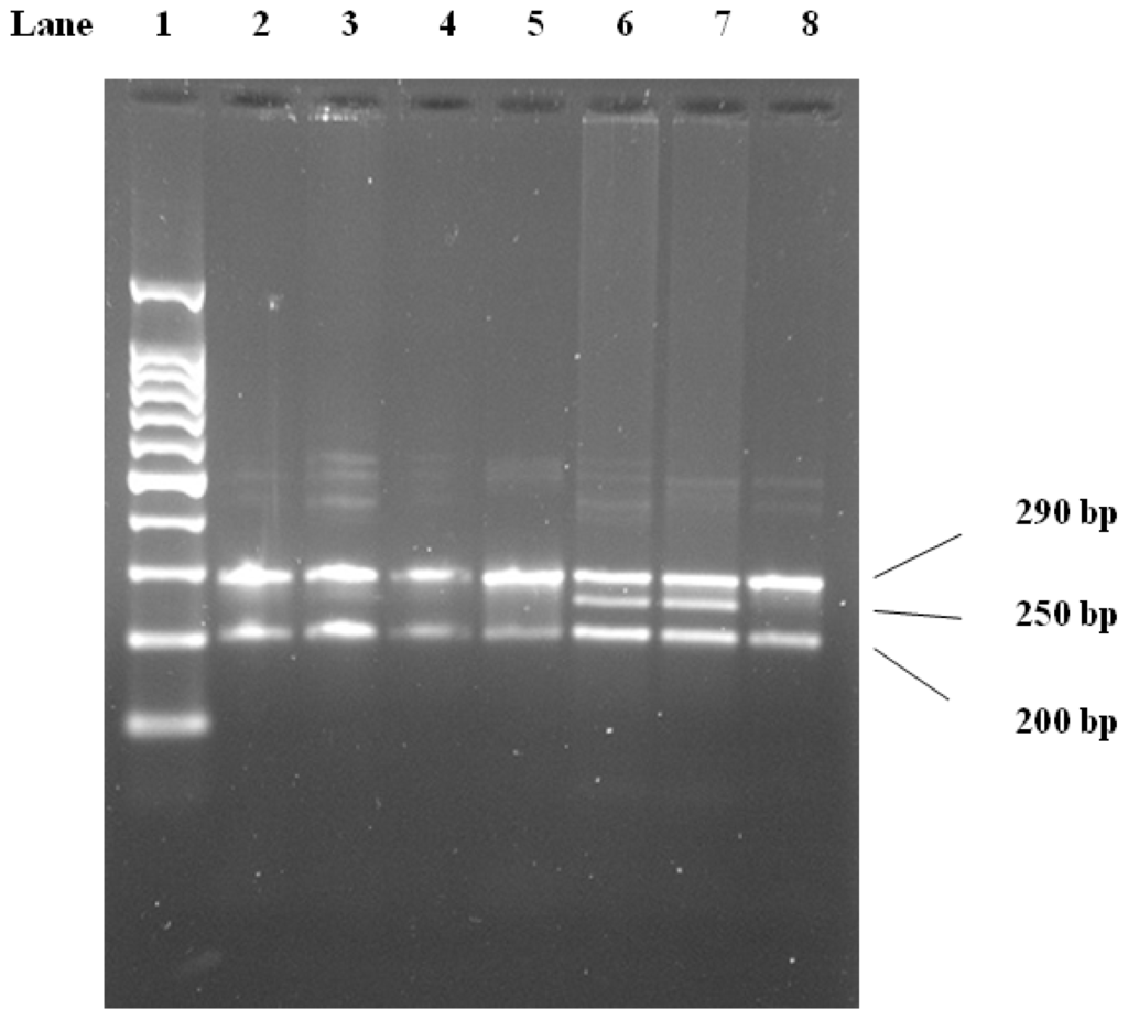 association of lipoprotein lipase gene polymorphism Lipoprotein lipase gene polymorphisms: associations with myocardial infarction and lipoprotein levels, the association with the biochemical traits examined.