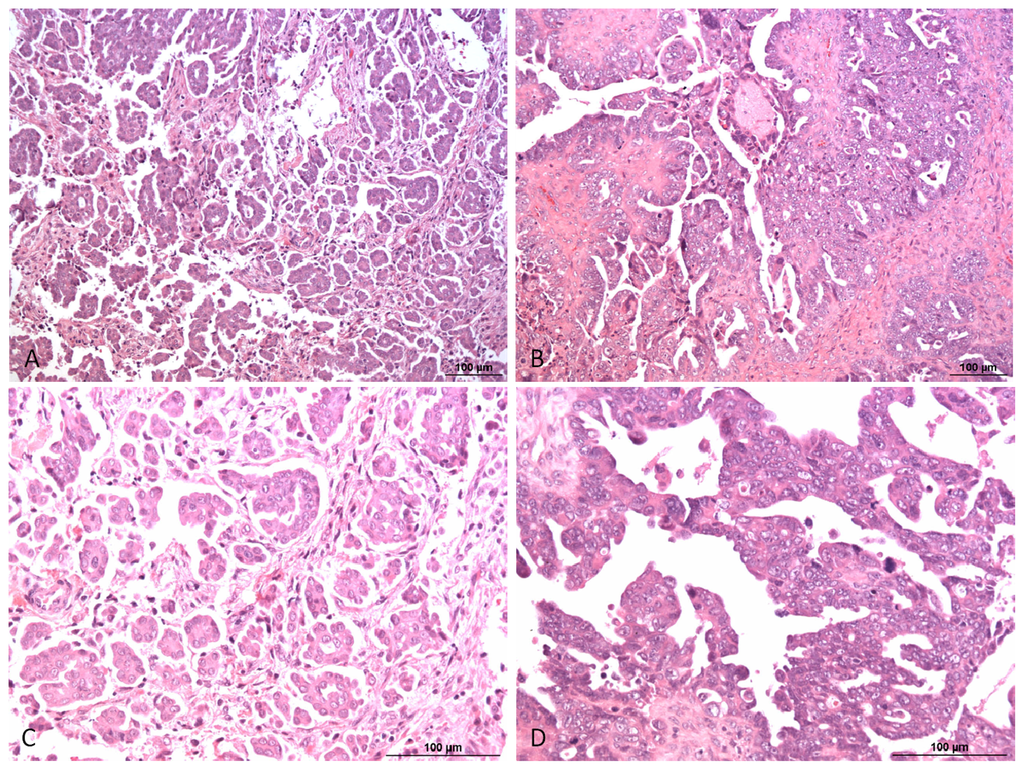 Ijms Free Full Text Targeting Signaling Pathways In Epithelial Ovarian Cancer Html