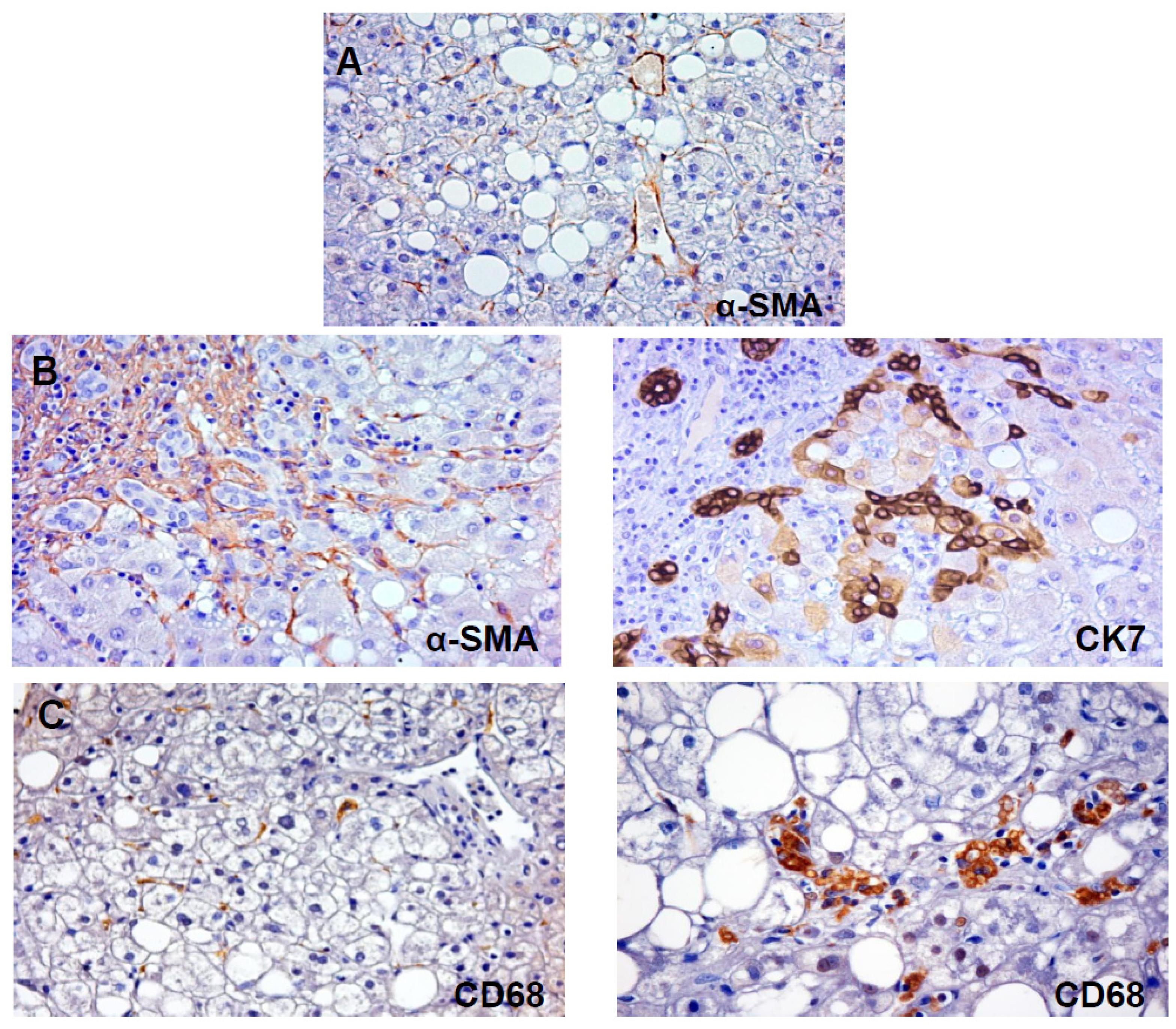stellate cells deutsch
