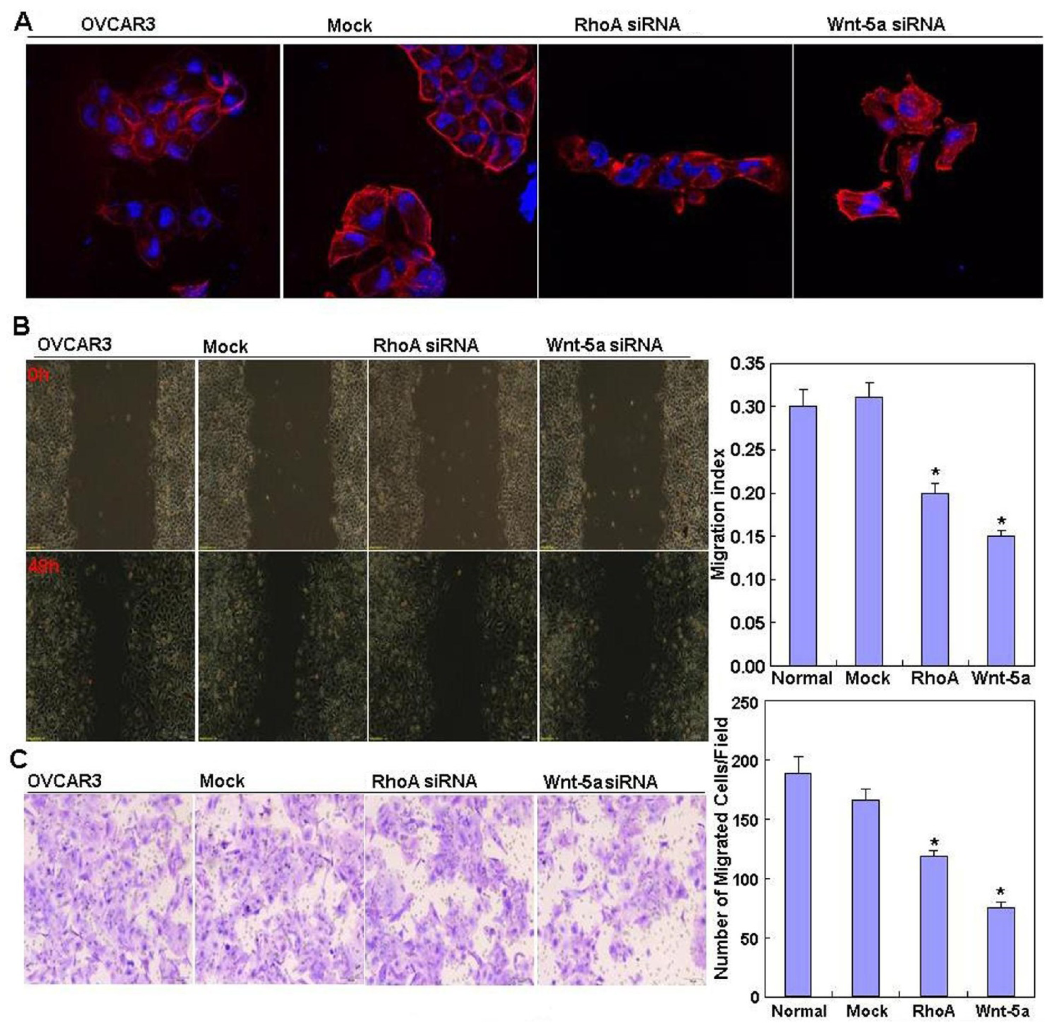 Oct4 expression enhances CSC property and invasion ability