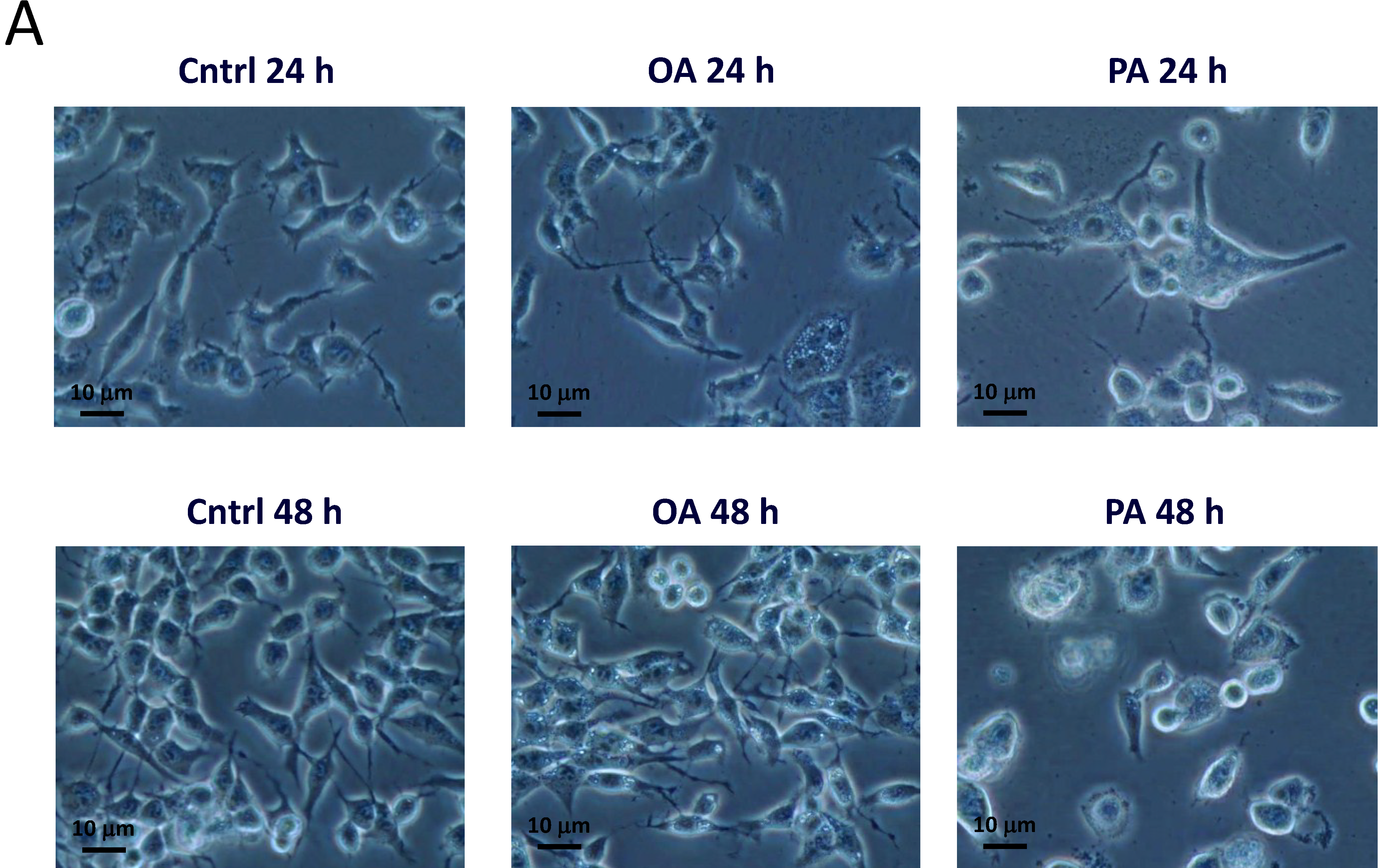 ijms free fulltext palmitic acidinduced neuron cell