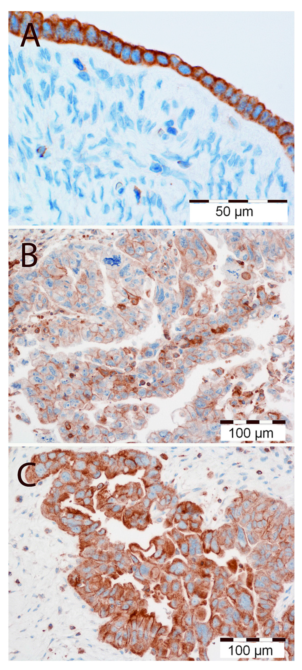 Ijms Free Full Text Expression Of The Mt1 Melatonin Receptor In Ovarian Cancer Cells