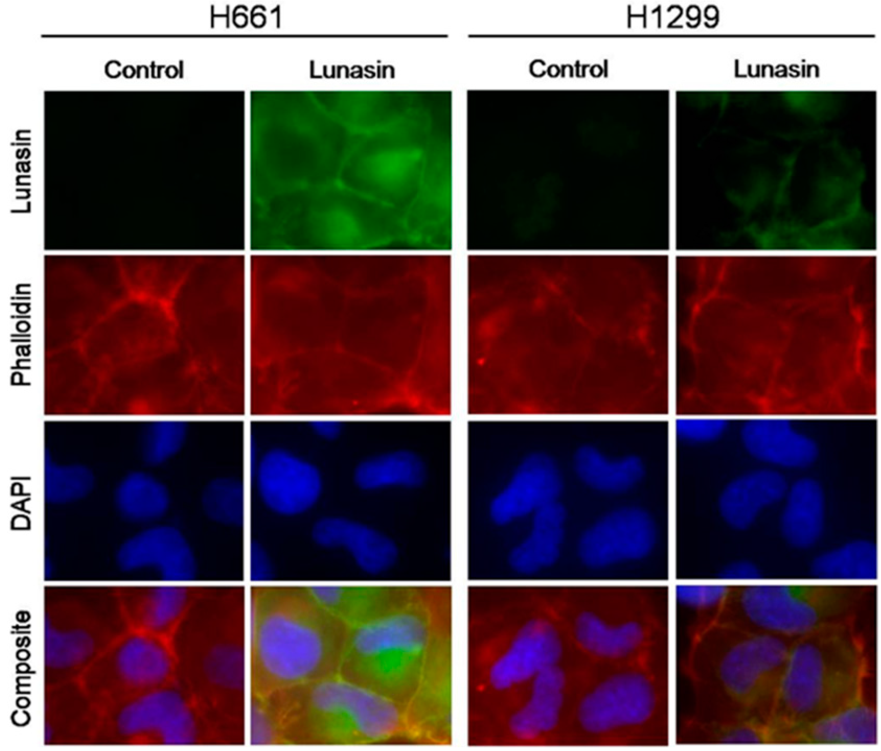 Ijms Free Full Text Lunasin Sensitivity In Non Small Cell Lung Cancer Cells Is Linked To Suppression Of Integrin Signaling And Changes In Histone Acetylation Html