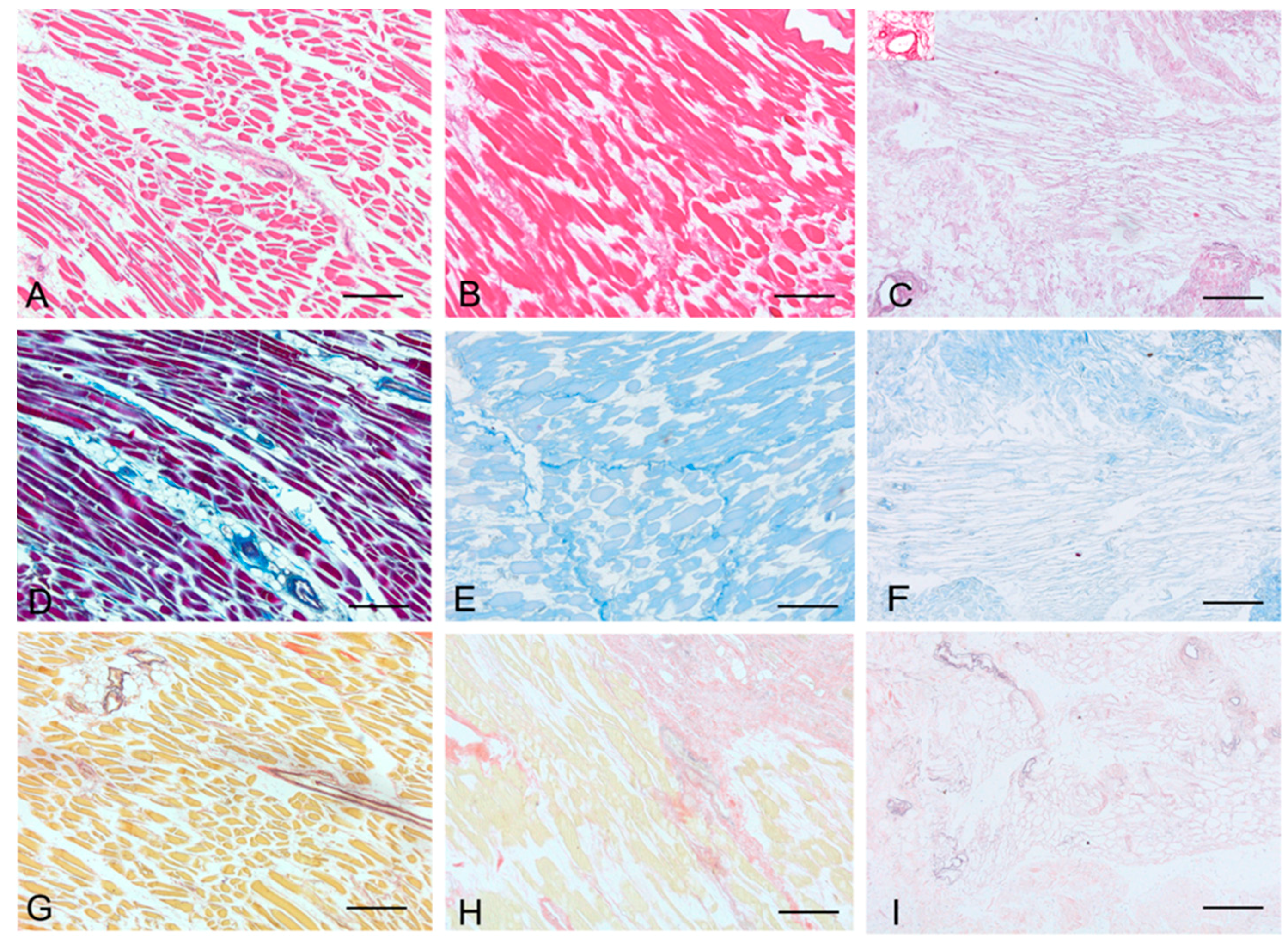 Ijms Free Full Text Decellularized Human Skeletal Muscle As