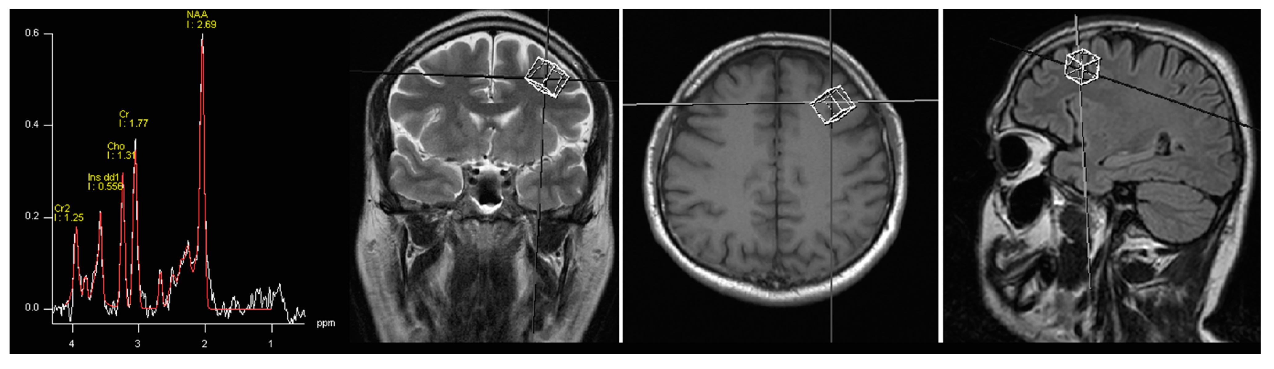 IJMS | Free Full-Text | Adding Sarcosine to Antipsychotic