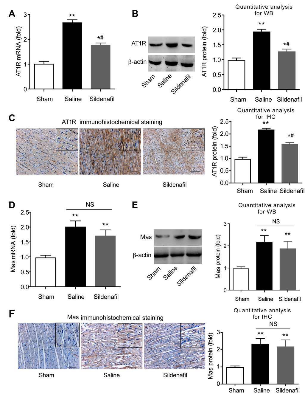 IJMS - Free Full-Text - Sildenafil Protects against Myocardial Ischemia-Reperfusion Injury Following Cardiac Arrest in a Porcine Model: Possible Role of the Renin-Angiotensin System - HTMLSildenafil Protects against Myocardial Ischemia-Reperfusion Injury Following Cardiac Arrest in a Porcine Model: Possible Role of the Renin-Angiotensin System - 웹